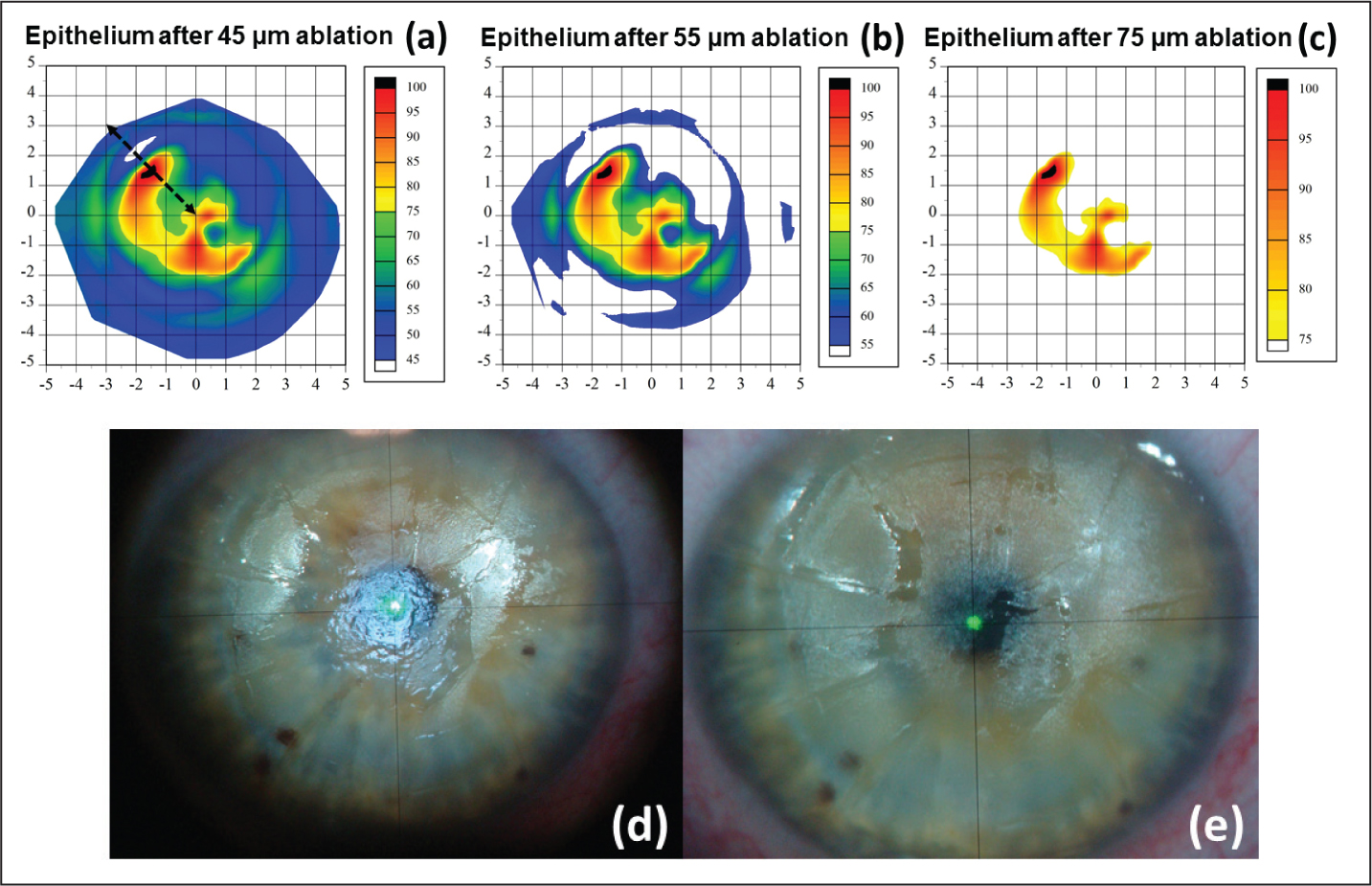 Artemis digital subtraction pachymetry simulation (ArcScan, Inc., Morrison, CO) of the pattern of remaining epithelium that would be expected after increasing transepithelial phototherapeutic keratectomy (TE-PTK) ablations after (A) 45 μm, (B) 55 μm, and (C) 75 μm. The white represents the regions where all of the epithelium would have been ablated after the labeled TE-PTK ablation, and hence the regions where ablation of stromal tissue would occur. During the procedure, the cornea was examined (as shown in the intraoperative photograph, [D]) and the areas of exposed stroma were compared to the Artemis simulated maps. At this point, the ablation depth for the subsequent TE-PTK ablations can be calibrated for each eye individually. Further TE-PTK ablations are then performed in a stepwise fashion until the intended end-point is reached. (E) The intraoperative photograph in this example shows the pattern of remaining epithelium was similar to the predicted pattern.