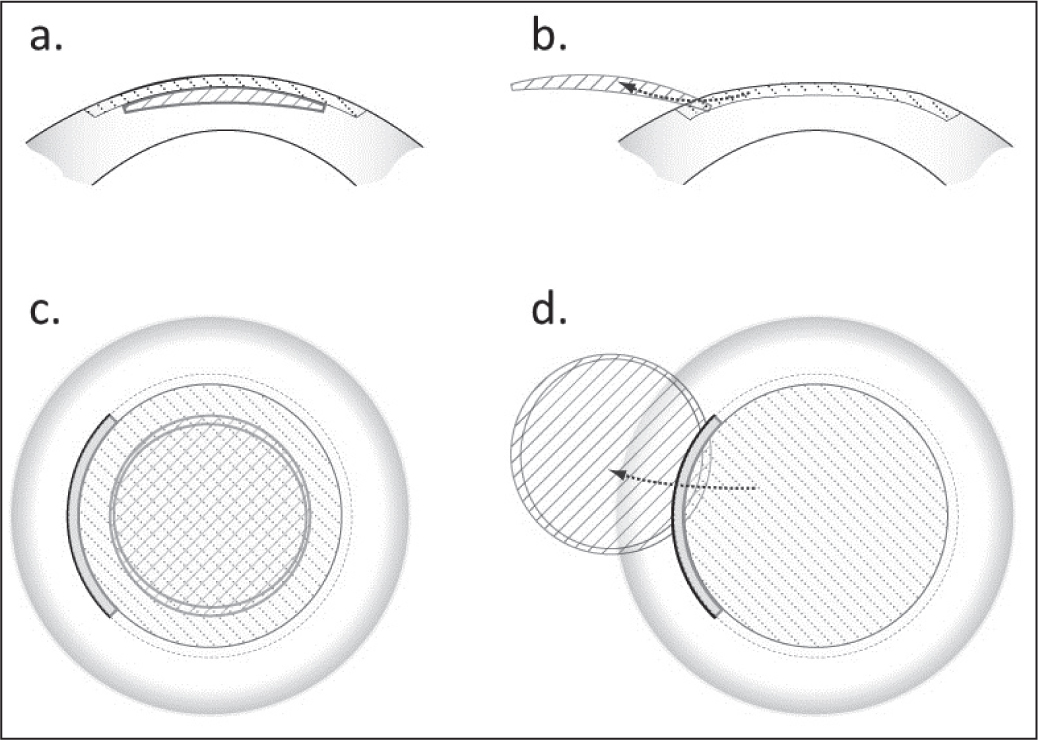 (A) Side view of the small incision lenticule extraction cap (downward diagonal shading) and refractive lenticule (upward diagonal shading) relative to full corneal thickness. (B) Side view of lenticule extraction and relaxation of the cap to corrected curvature. (C) Top view of the cap and lenticule. The bolded area illustrates the location of the pocket opening through which the lenticule was removed. (D) Top view of lenticule extraction through the pocket opening.