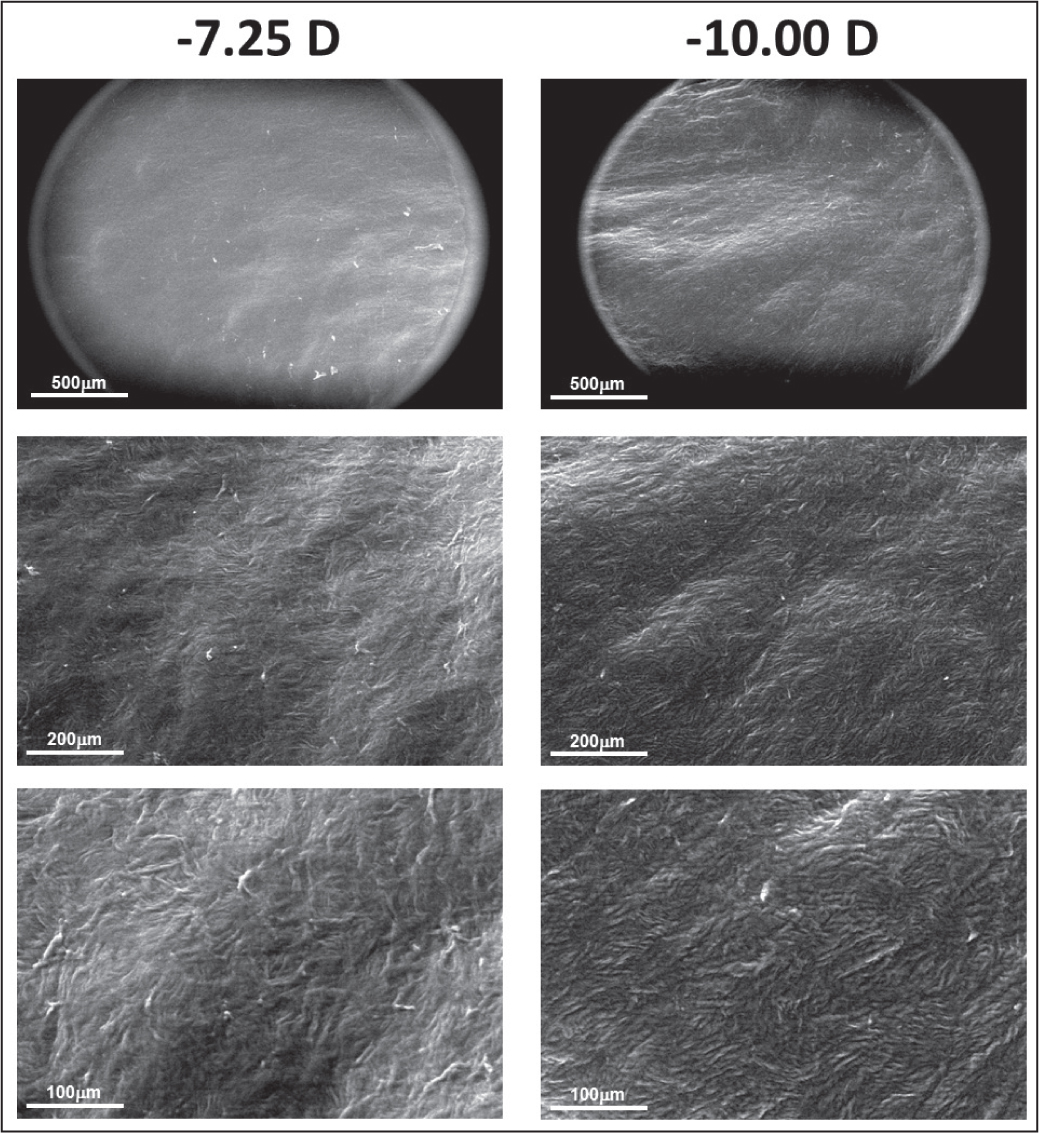 Environmental scanning electron microscope images of the top surface of the corneal lenticules taken at 100× (top), 250× (middle), and 500× (bottom). Low magnification images contain the microscope field aperture. The left column corresponds to sample 4 and the right column corresponds to sample 8. D = diopters