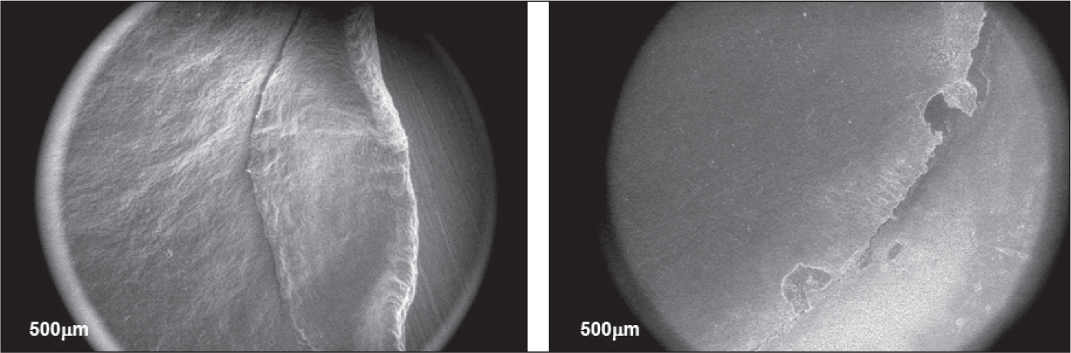 Folded lenticule sample, illustrating the regularity of the edge (left). Lenticule edge with clear marks from the forceps used to remove the lenticule (right). Original magnification 100× and low magnification images contain the microscope field aperture.
