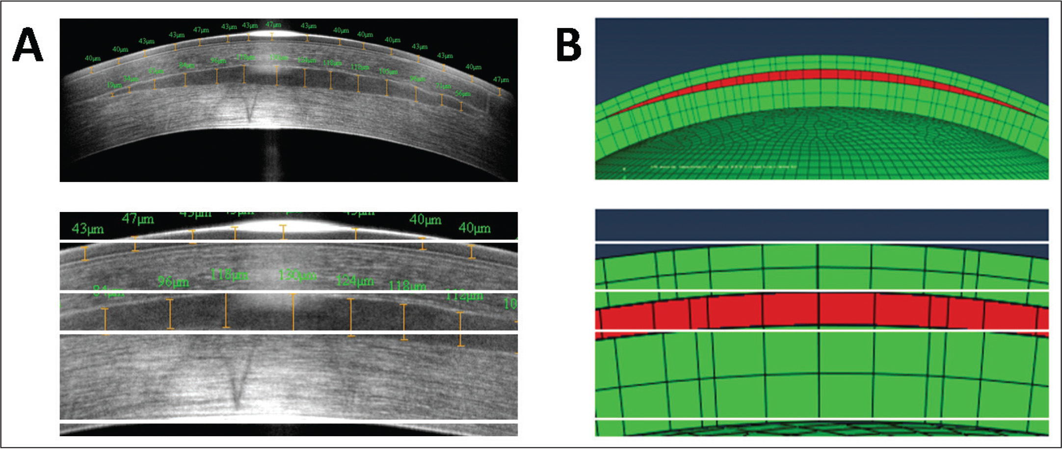 (A) Optical coherence tomography (RTVue OCT; Optovue Inc., Fremont, CA) measurement 6 months after endokeratophakia procedure. (B) Section of the biomechanical model. The lenticule implant is shown in red. The lower figures are magnifications of the upper figures (original magnification ×3.5).
