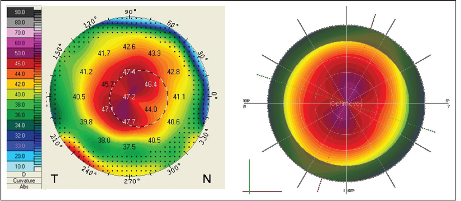 (Left) The postoperative endokeratophakia procedure anterior axial curvature map. (Right) The predicted anterior axial curvature map from finite element simulations, reproducing the surgical treatment in silico. The figure shows that the simulation closely reproduces postoperative clinical anterior corneal curvatures. The color scale ranges from 10.0 to 90.0 diopters.