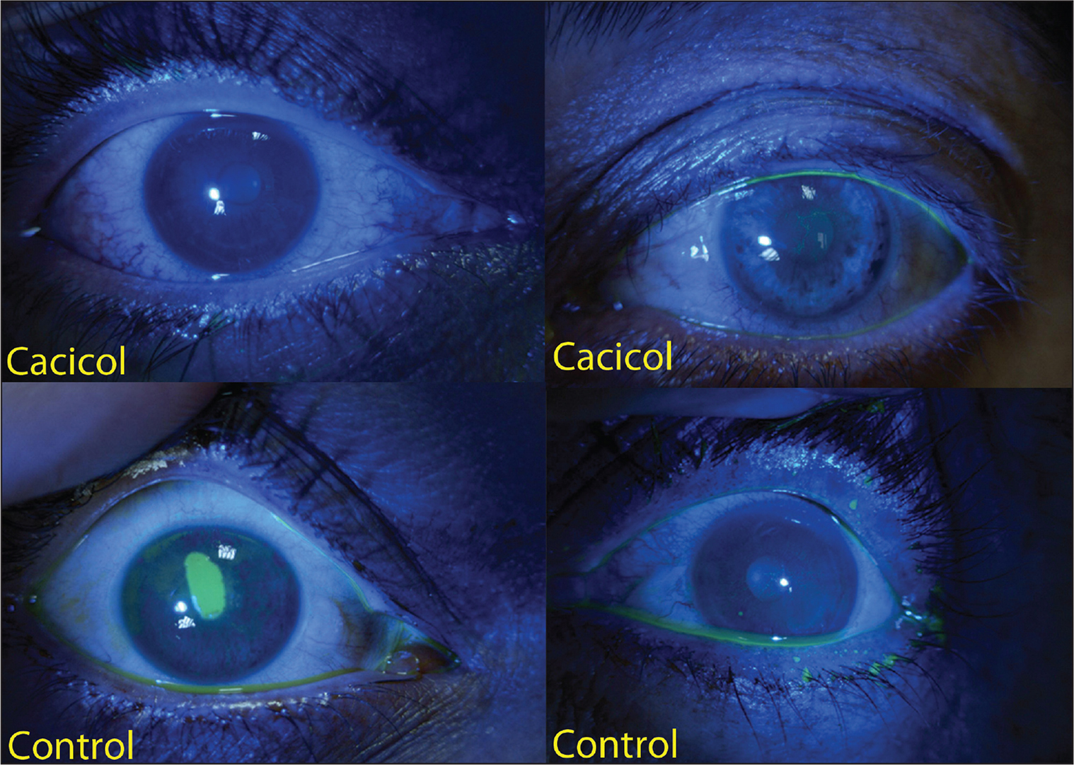Different corneal healing patterns in ReGeneraTing Agent (RGTA) (OTR4120 Cacicol; Laboratoires Théa, Clermont-Ferrand, France) and control groups on day 2.