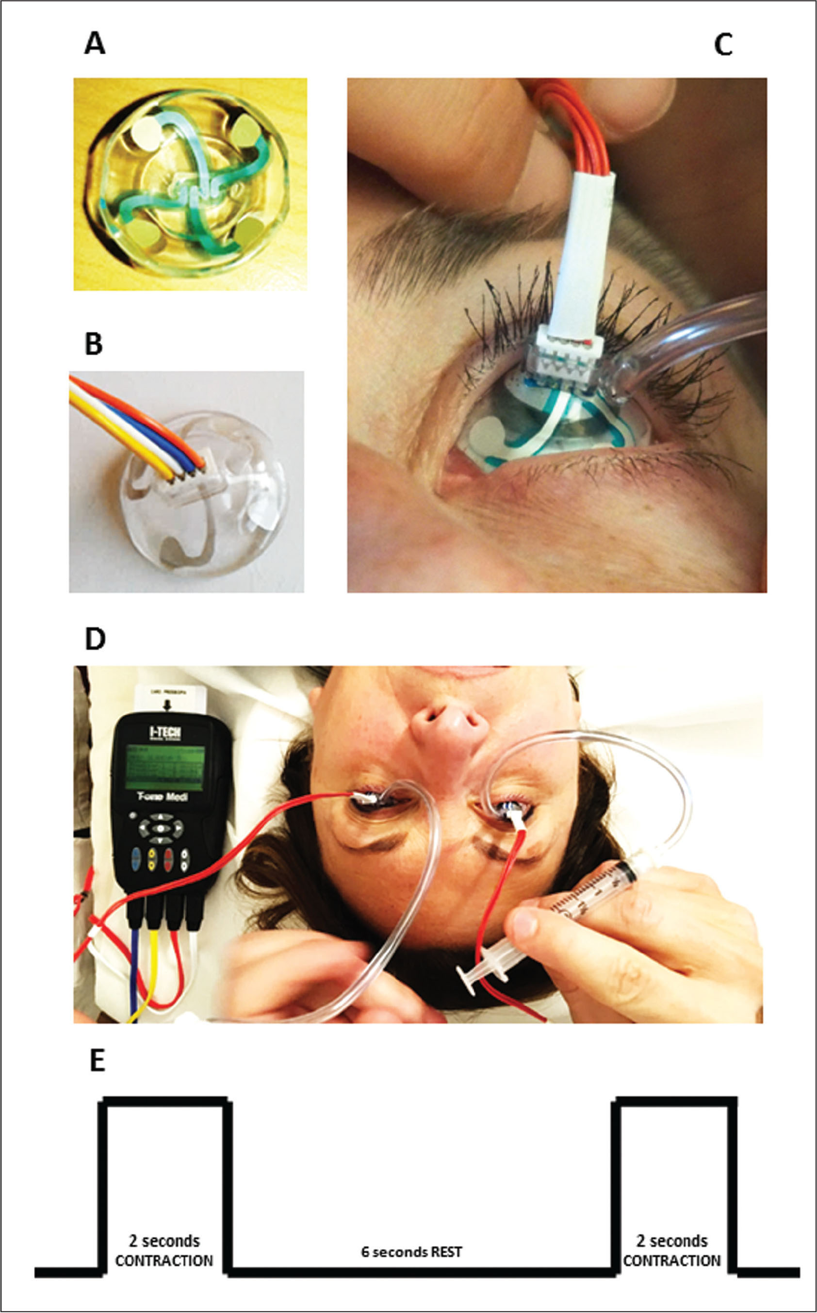 Illustration of the medical device for the electrostimulation of the ciliary muscle. (A) Bottom side of the lens showing the four electrode contacts. (B) Upper side of the lens showing the four cables to be connected to the power generator. (C) Positioning of the lenses on the ocular surface of a patient. (D) Power supply during a bilateral simultaneous treatment in which two scleral contact lenses in polycarbonate are stabilized by two syringes creating a vacuum and connected by cables directly to the Ocufit (Sooft; Montegiorgio, Italy) electrostimulator medical device. (E) Pulse trains are in the form of compensated biphasic square-waves. The graph illustrates treatment cycle sequences consisting in pulsed repetitions of 2 seconds of electrical impulse followed by 6 seconds of rest.