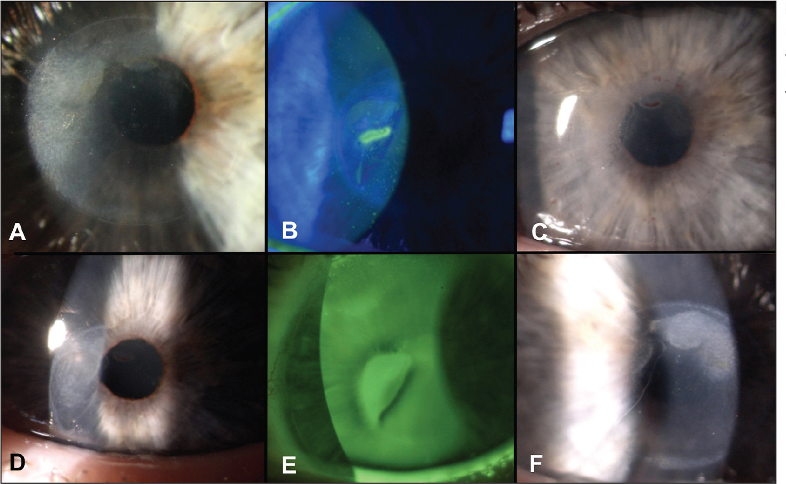 (A) Corneal inlay 7 years after implantation. (B) Corneal inlay 11 years after implantation with epithelial and stromal defect. (C) Cornea 1 day after explantation. (D) Cornea 2 weeks after explantation. (E, F) Cornea 3 months after explantation.