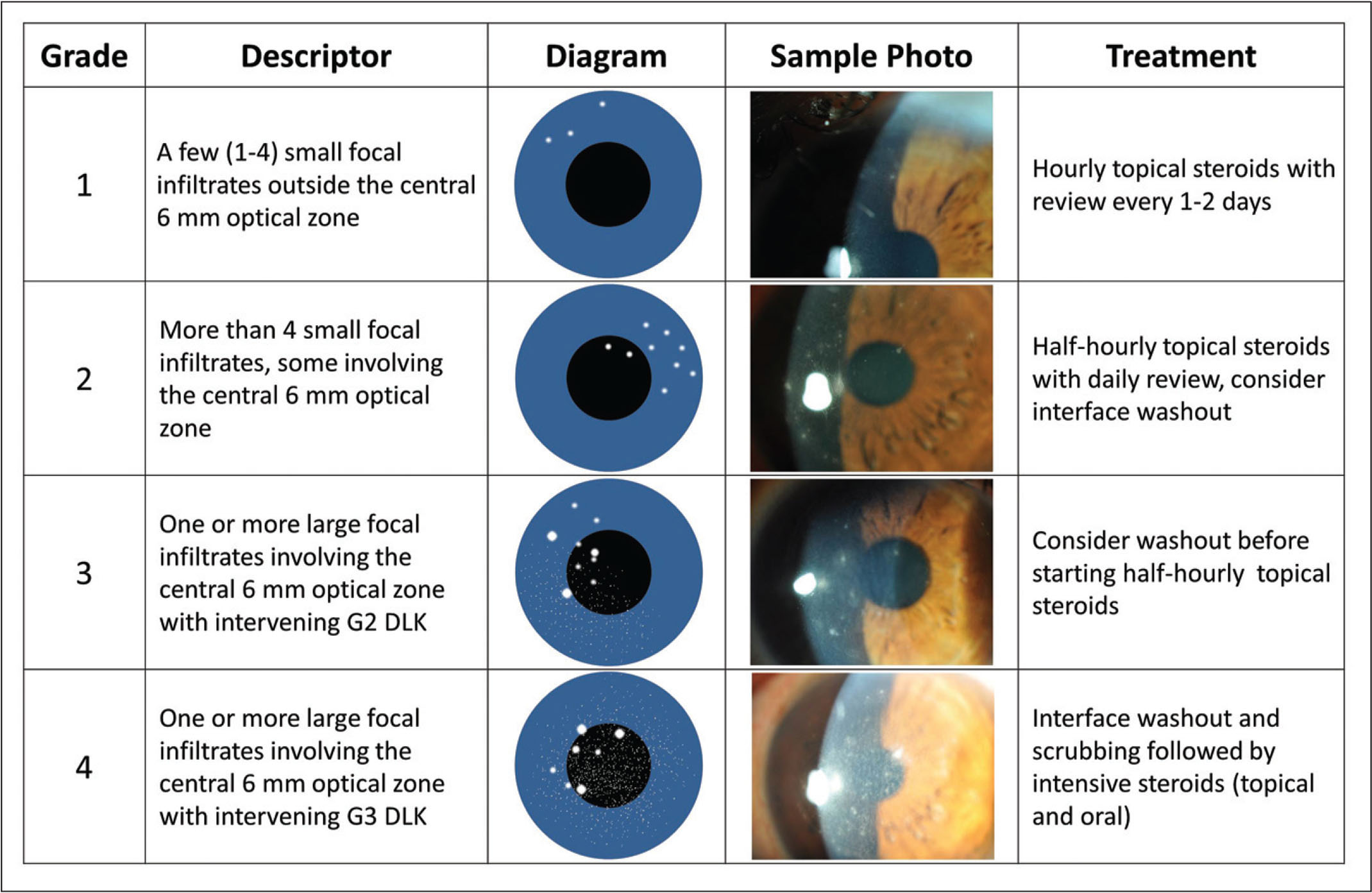Grading scale for sterile multifocal inflammatory keratitis. The scale includes a descriptor of the appearance (column 2), a diagrammatic example of the appearance (column 3), a slit-lamp photograph sample (column 4), and a suggested treatment approach for each corresponding grade. DLK = diffuse lamellar keratitis