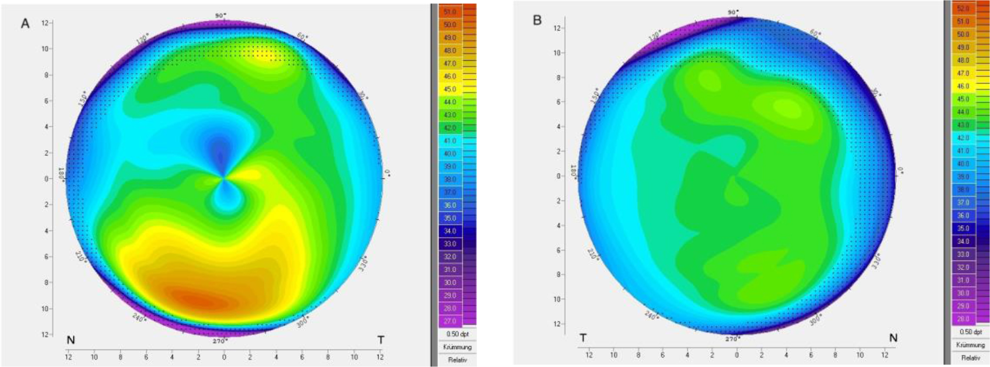 Corneal topography of patient 8 with very asymmetric keratoconus showing (A) ectasia and (B) regular topography in the fellow eye.