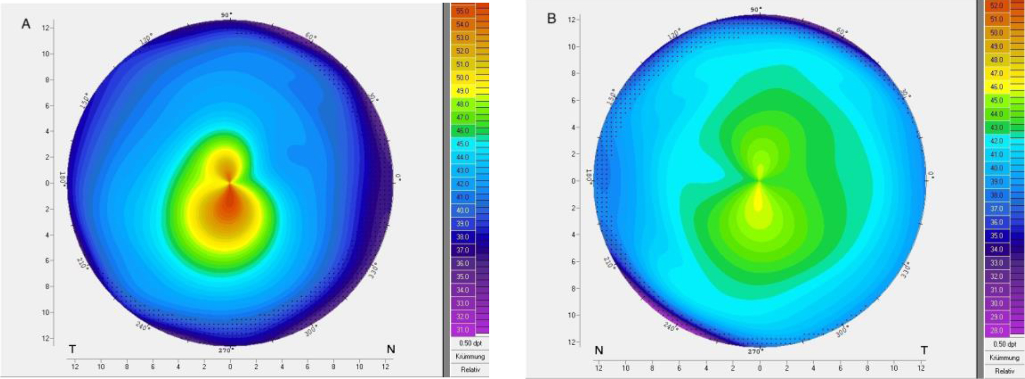 Corneal topography of patient 10 with very asymmetric keratoconus showing (A) ectasia and (B) regular topography in the fellow eye.