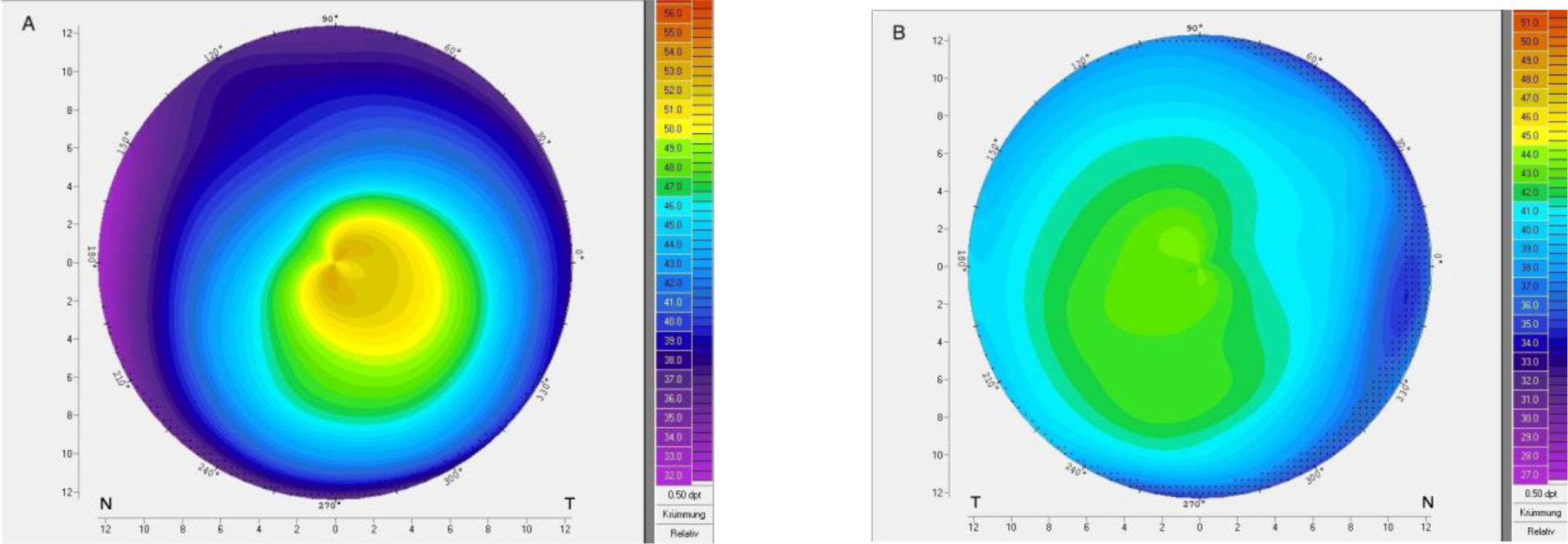 Corneal topography of patient 1 with very asymmetric keratoconus showing (A) ectasia and (B) regular topography in the fellow eye.
