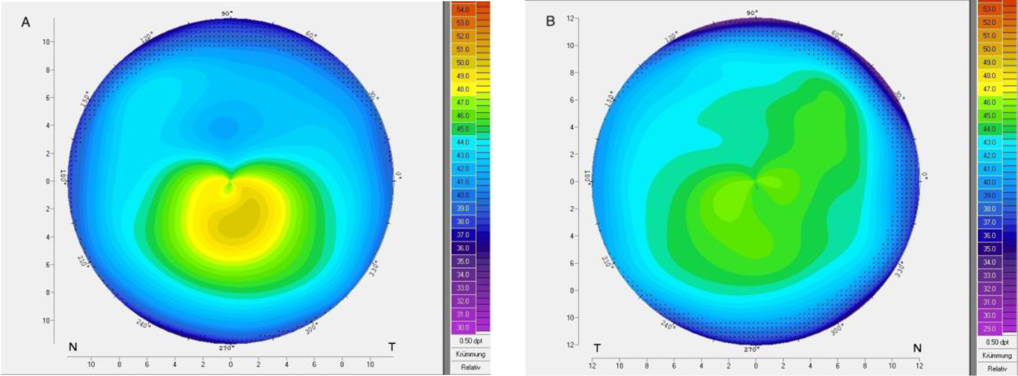 Corneal topography of patient 6 with very asymmetric keratoconus showing (A) ectasia and (B) regular topography in the fellow eye.