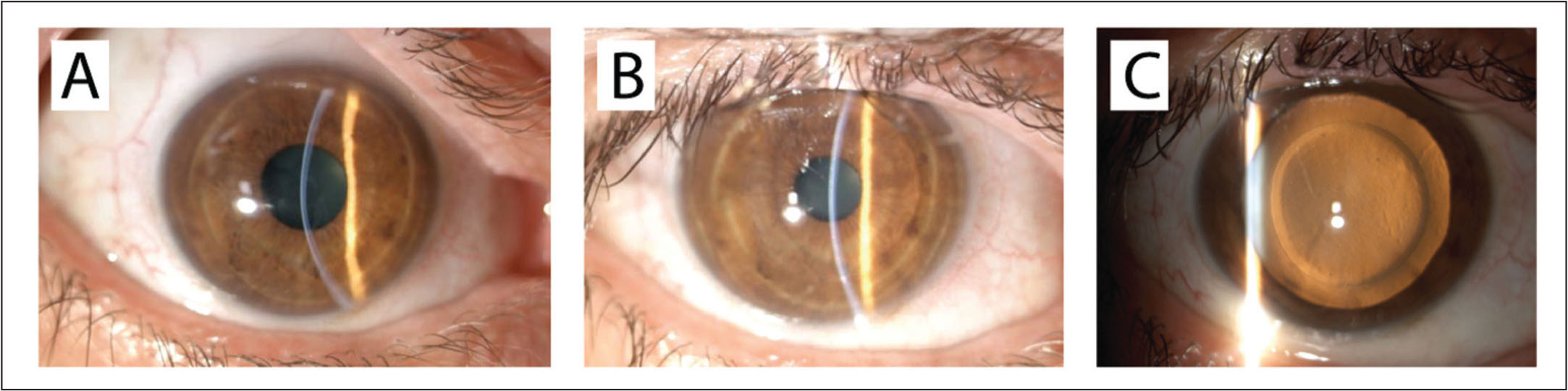 Slit-lamp photographs showing the (A) preoperative and (B and C) postoperative features of the cornea after stromal lenticule addition surgery. (B) The cornea appears clear with a transparent interface at 1 month after surgery and the intrastromal lenticule is barely visible. (C) Transillumination slit-lamp photograph highlights the lenticule profile.