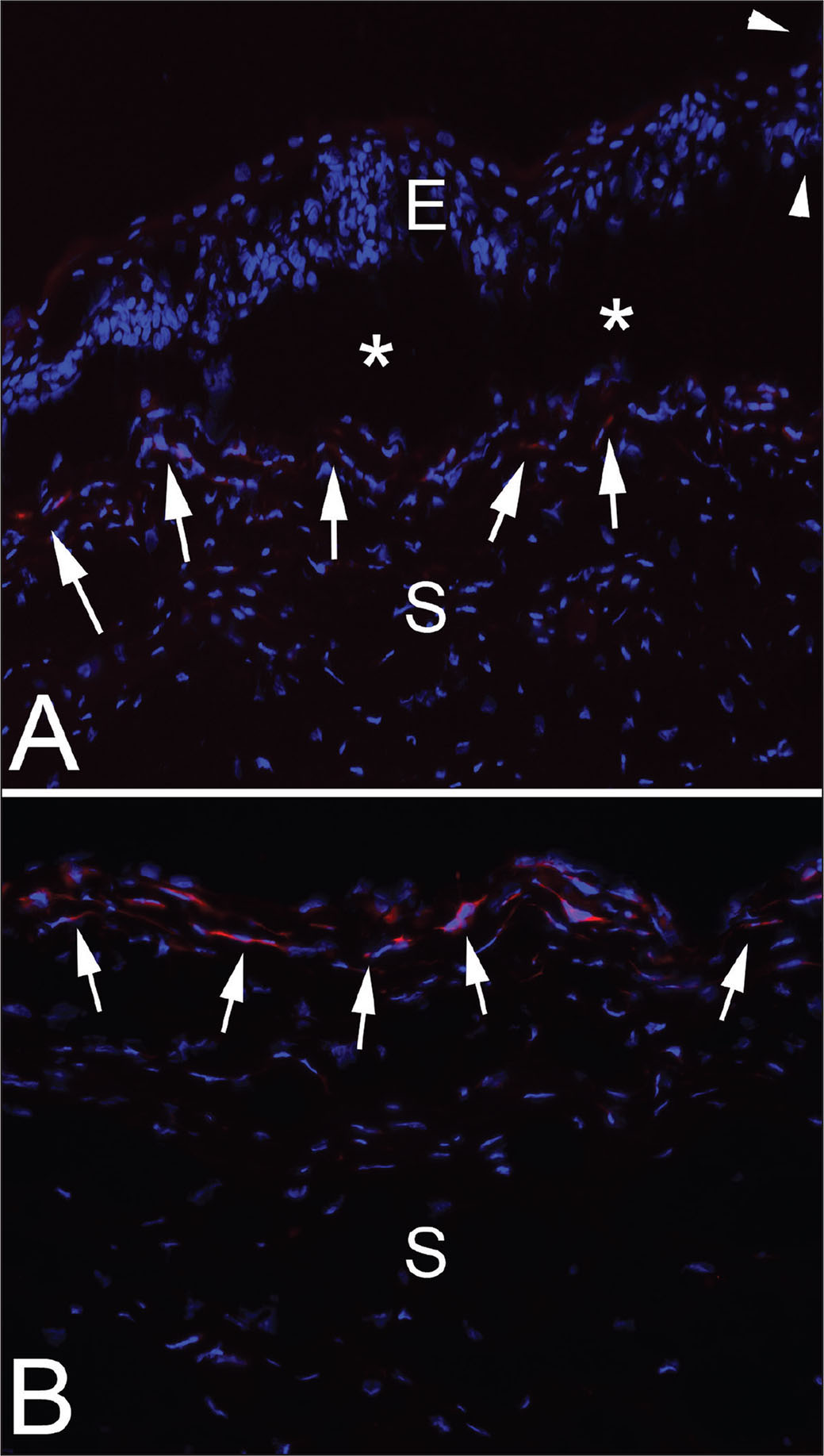 Immunohistochemistry for the alpha-smooth muscle actin (α-SMA) marker for myofibroblasts in the cornea of rabbit 1. Blue stain is DAPI that stains all cell nuclei. (A) The epithelial leading edge (arrowheads) is rolled and the epithelium for up to 0.3 mm posterior to the leading edge showed poor adhesion and repeated artifactual dissociation (*) from the underlying stroma (S) in all sections cut with a cryostat. α-SMA+ myofibroblasts are present at the stromal surface all along the dissociated epithelium (E) (arrows) and, therefore, peripheral to the leading edge of the epithelium in the PED (original magnification ×400). (B) In the center of the PED the stromal surface has prominent α-SMA+ myofibroblasts (arrows) (original magnification ×400).