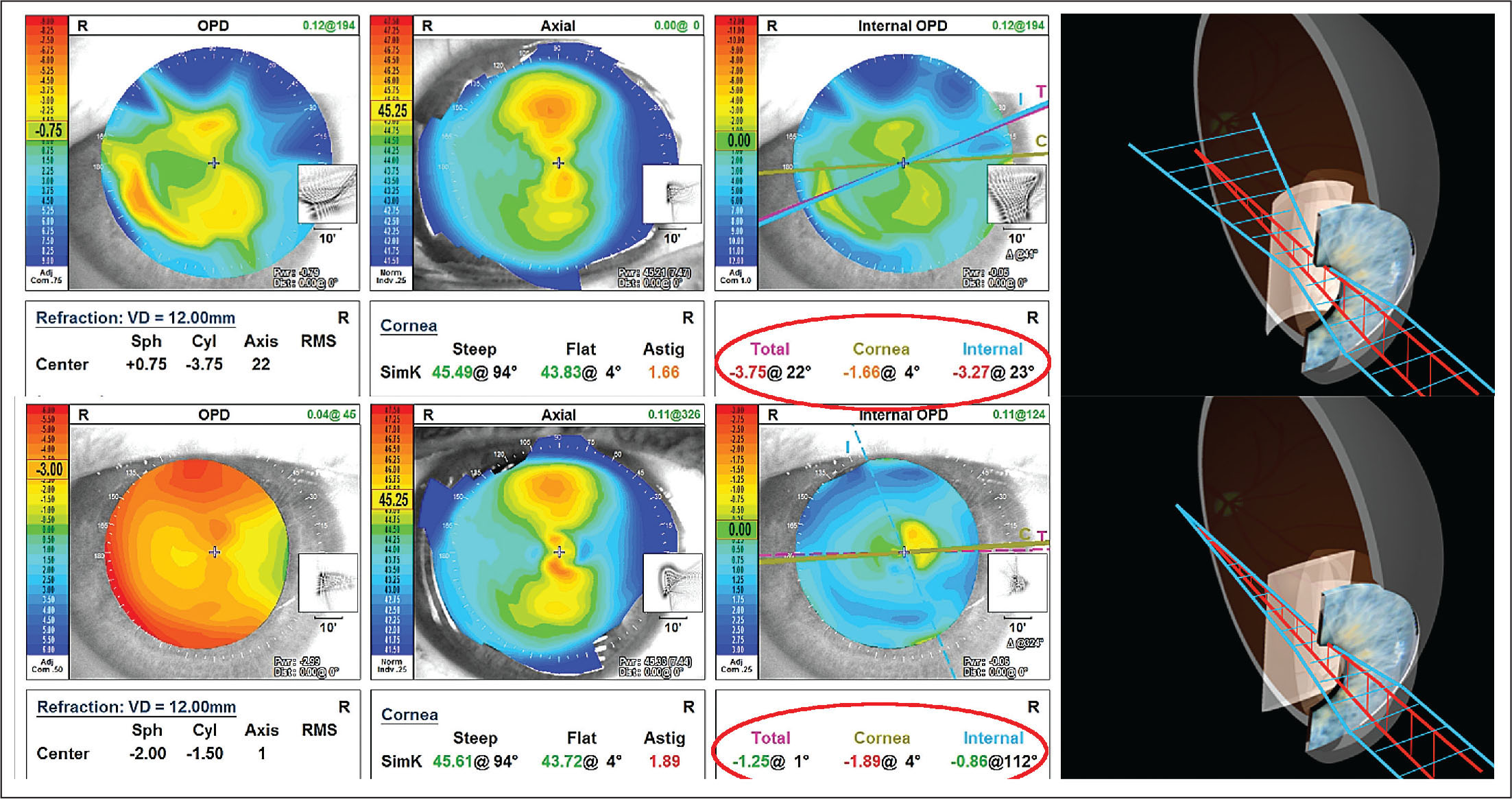 OPD-scan III (Nidek, Gamagori, Japan) representation of total (first column), corneal (second column), and internal astigmatism (third column) before (top) and after (bottom) Nd:YAG capsulotomy. Red ellipses show numeric changes in total, corneal, and internal astigmatism before and after capsulotomy. After capsulotomy, the corneal component remains almost constant, whereas total astigmatism is reduced and is represented mainly by the corneal astigmatism. Three-dimensional representation (fourth column) shows the bended IOL before (top) and after (bottom) laser capsulotomy. Light rays refracted by the IOL steep and flat axes are represented in blue and red, respectively. (Illustrations by Damien Gatinel.)