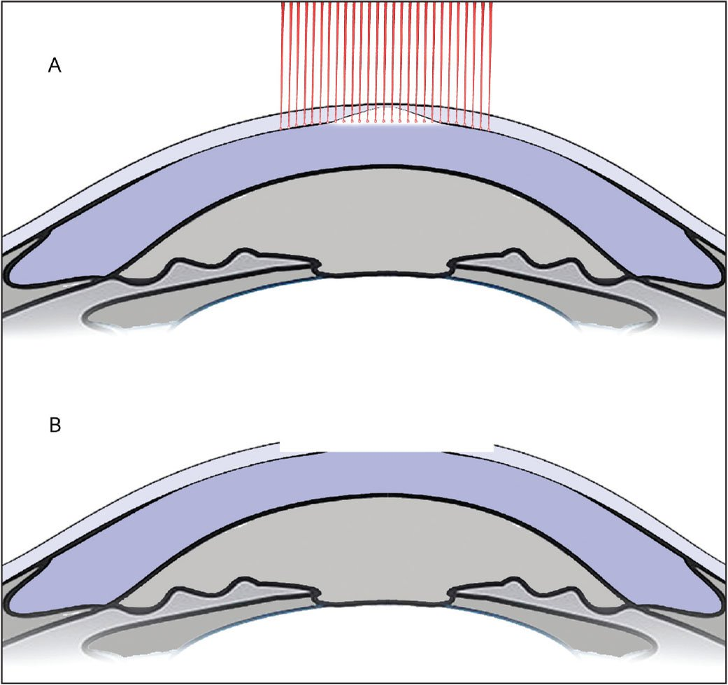 The effect on the cornea of the first topography-guided ablation with a small optical zone and no transition zone. (A) The black line between the stroma and epithelium refers to the limit of it, whereas the white color highlights the apical scar. The red lines denote the laser spots. (B) The ablation removes only the central scar and the 2 mm surrounding it, where the epithelium is thick, without involving the stromal surface.