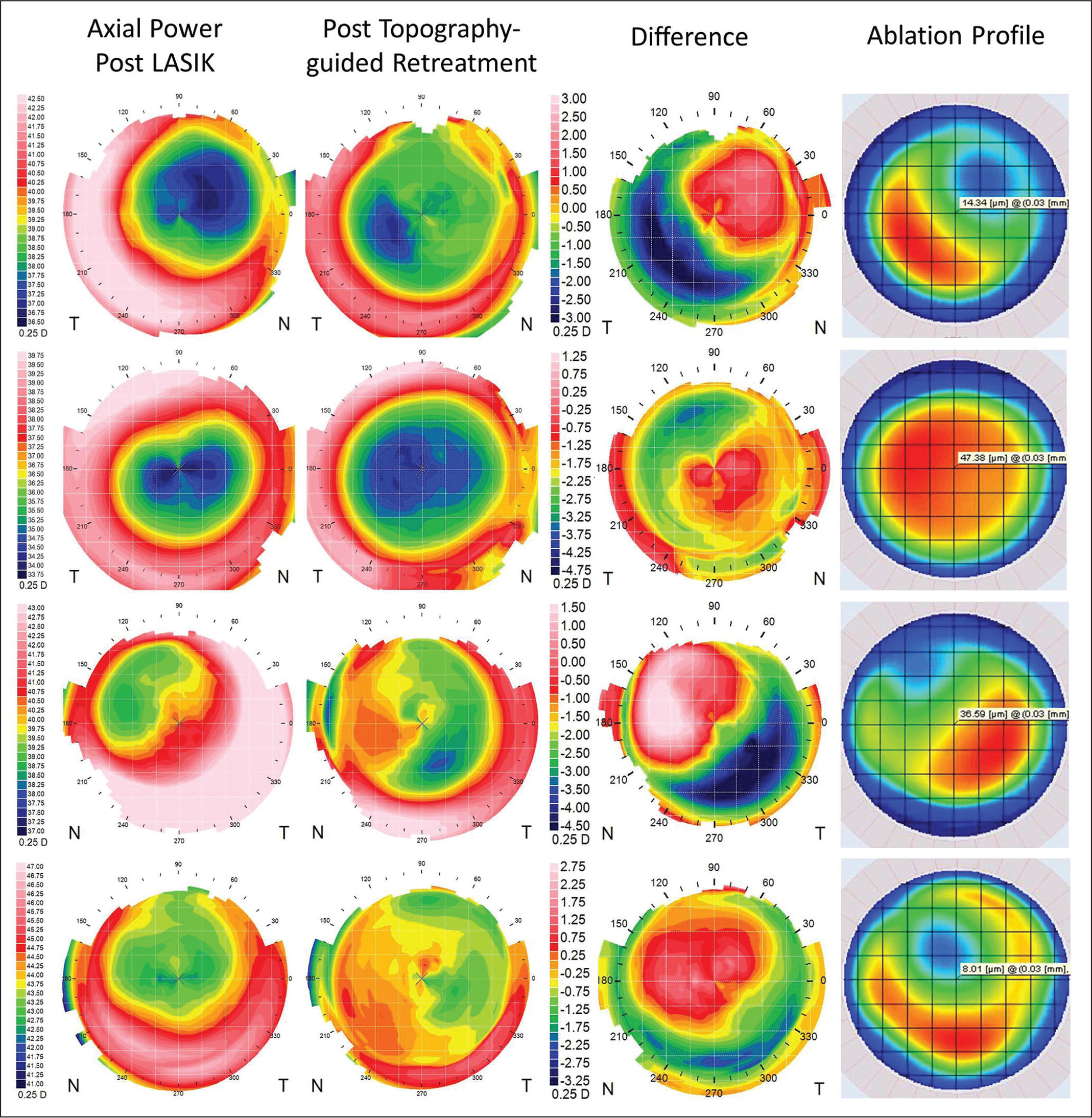 Four example cases showing the axial curvature map before and after a topography-guided re-treatment. The difference map is shown in the third column, next to the ablation profile that was used; the region of flattening on the difference map corresponded with the area of maximum ablation.