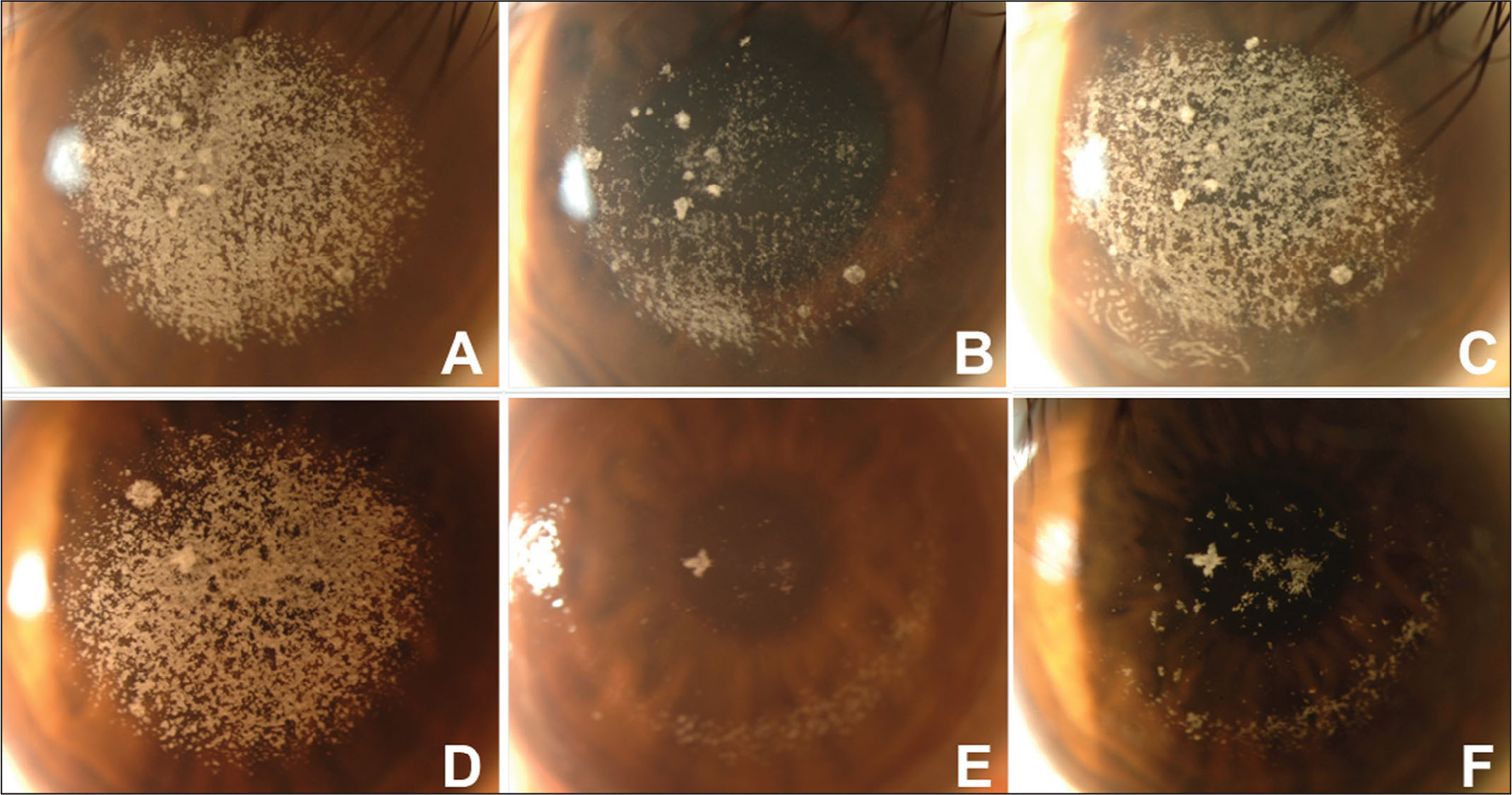Slit-lamp photographs revealing the recurrence and epithelial ingrowth after phototherapeutic keratectomy (PTK) in an eye that received flap conservation. (A) Right eye of a patient with granular corneal dystrophy type 2 exacerbated after LASIK before PTK. (B) Right eye of the same patient 10 days after PTK with flap conservation. (C) Right eye of the same patient with epithelial ingrowth in inferior and significant recurrence 35 months after PTK. (D) Left eye of the same patient before PTK. (E) Left eye of the same patient 10 days after PTK with flap removal. (F) Left eye of the same patient with some recurrence 36 months after PTK.