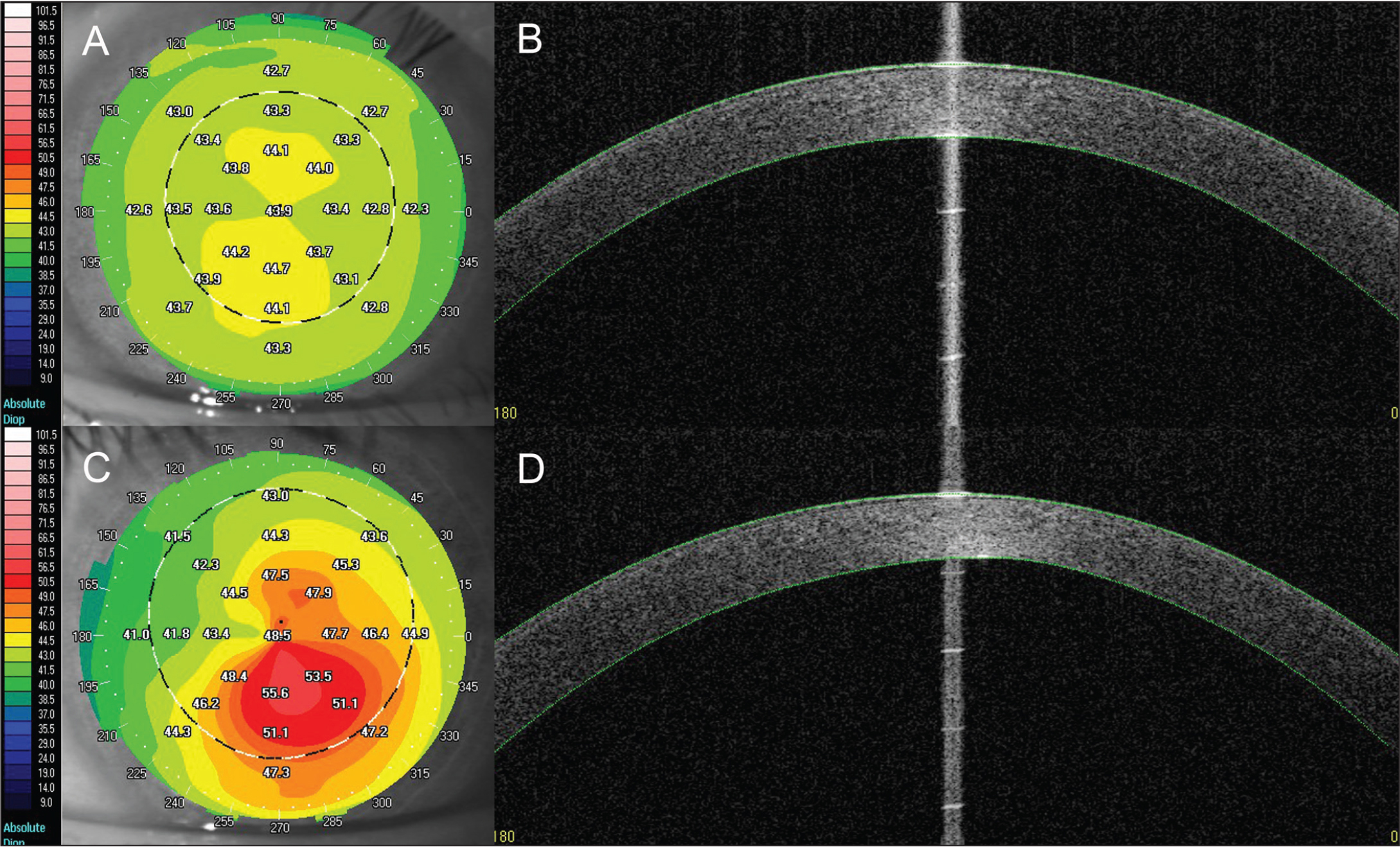 Swept-source optical coherence tomography analysis of corneas of keratoconic and normal patients. (A) Keratometric axial power topography of normal cornea. (B) Cross-section view of normal cornea. (C) Keratometric axial power topography of keratoconic cornea. (D) Cross-section view of keratoconic cornea.