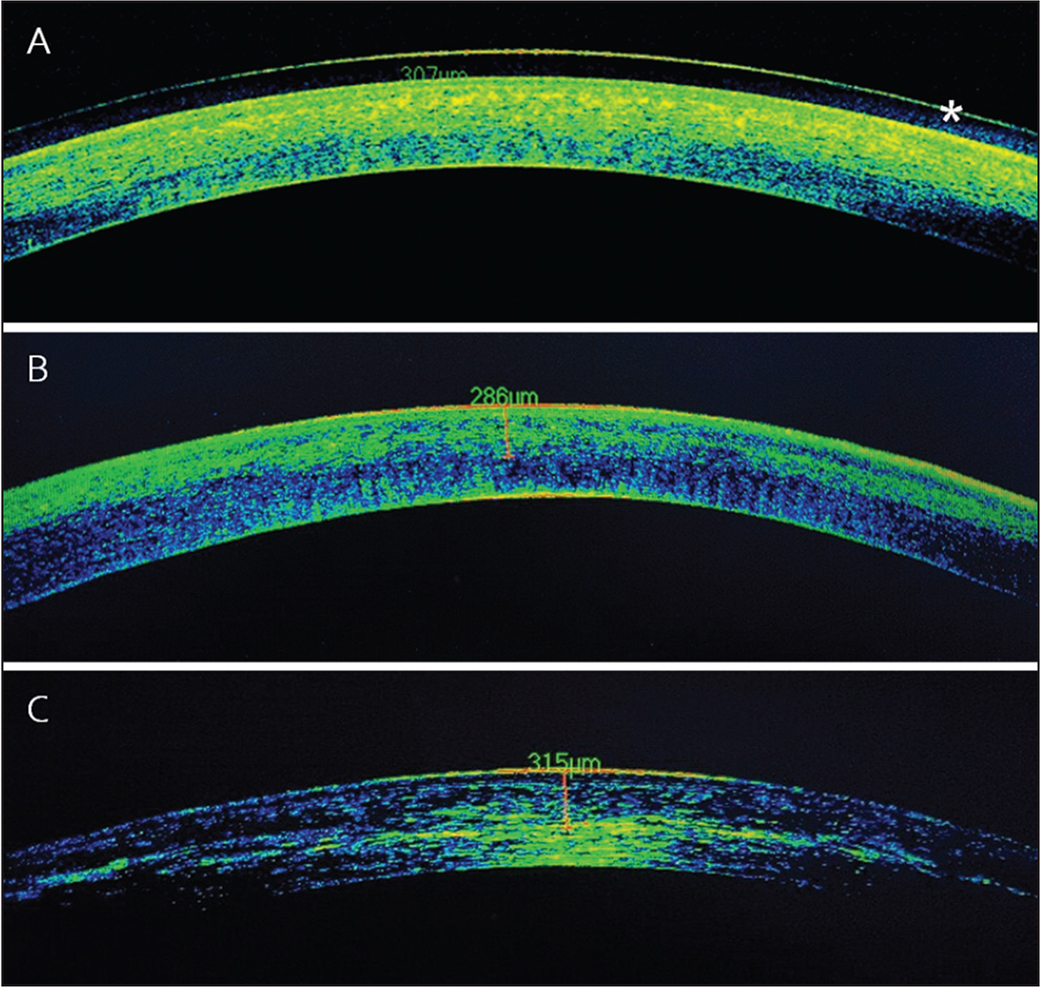 (A) Corneal optical coherence tomography (OCT) examination performed 72 hours after enhanced-fluence iontophoresis cross-linking (EF I-CXL) Ricrolin+ solution (Sooft, Montegiorgio, Italy) protocol showing a clear and homogeneous demarcation line with a marked tissue hyperreflectivity (asterisk). (B) Demarcation line depth, 72 hours after treatment, was evident in 83.3% of cases and averaged at 295.8 ± 20.2 μm depth. At 1 month postoperatively, the demarcation line was detectable with less intensity of stromal reflectivity due to less amount of stromal edema in more than 80% of cases. (C) At 3 months postoperatively, the demarcation line was still visible on OCT examination.