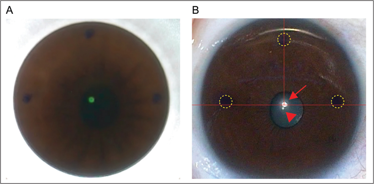 Triple marking centration method. (A) Surgeon's view after docking of operating eye. Triple markings were made at the horizontal meridian and the inferior cornea by bisecting the coaxially sighted corneal light reflex. During the docking procedure, decentration and static cyclotorsion were corrected via triple marking centration method. (B) The eye was centered at the coaxially sighted corneal light reflex and cyclotorsion was corrected after the docking procedure. yellow circle = marking; arrowhead = pupil center; arrow = coaxially sighted corneal light reflex