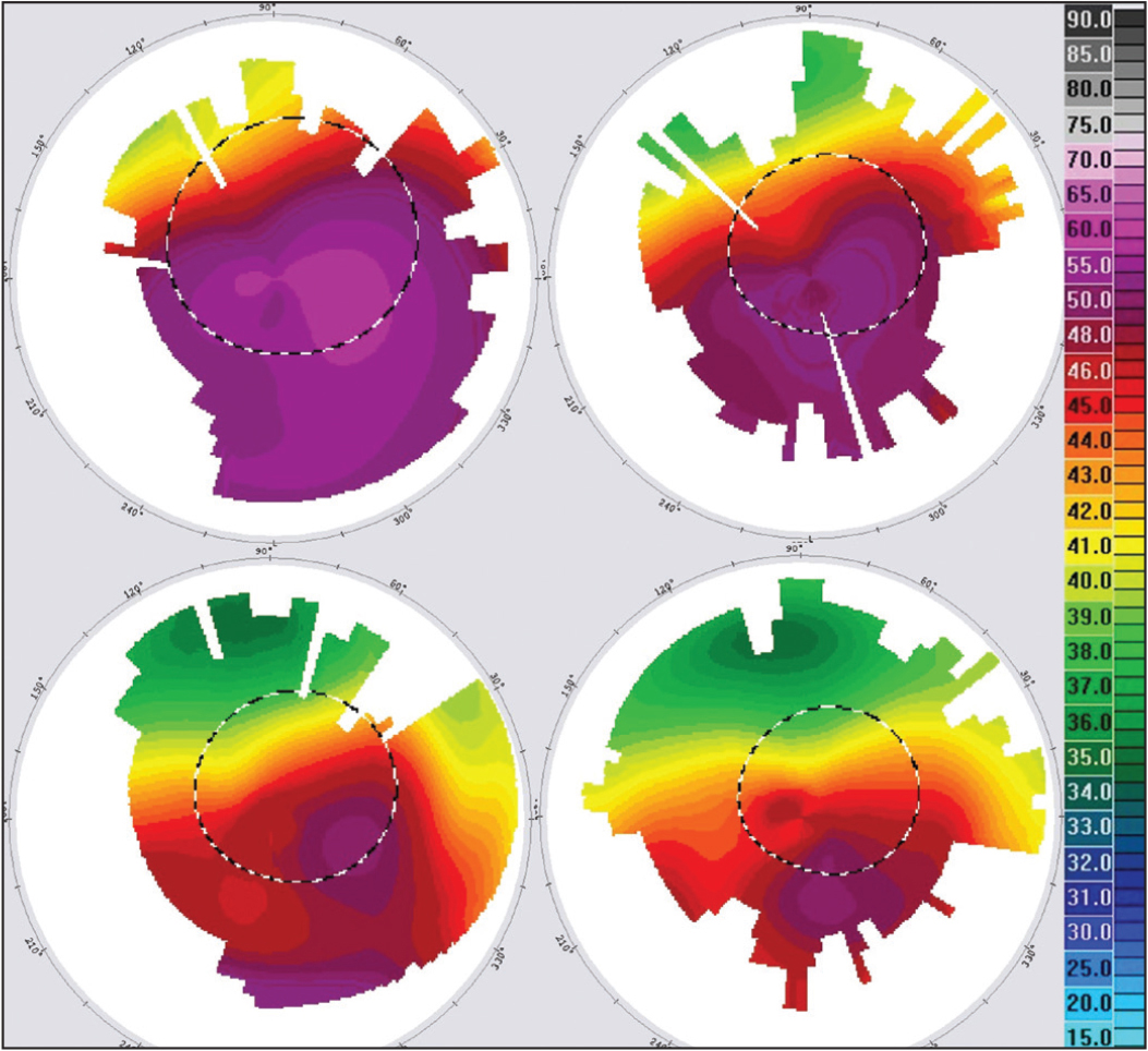 Corneal topographies 1, 4, 7, and 10 years after corneal cross-linking (CXL) (case 3).