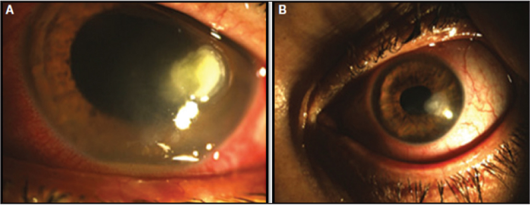 A 47-year-old woman who wore daily contact lenses due to myopia presented with a paracentral ulcer. (A) Visual acuity was 20/60. Corneal culture was positive for Pseudomonas aeruginosa and Staphylococcus epidermidis. She was treated with fortified vancomycin and ceftazidime and underwent photoactivated chromophore for keratitis corneal cross-linking (PACK-CXL) on day 14. The ulcer regressed following the procedure, leaving a scar. (B) Six months later her vision was 20/40.
