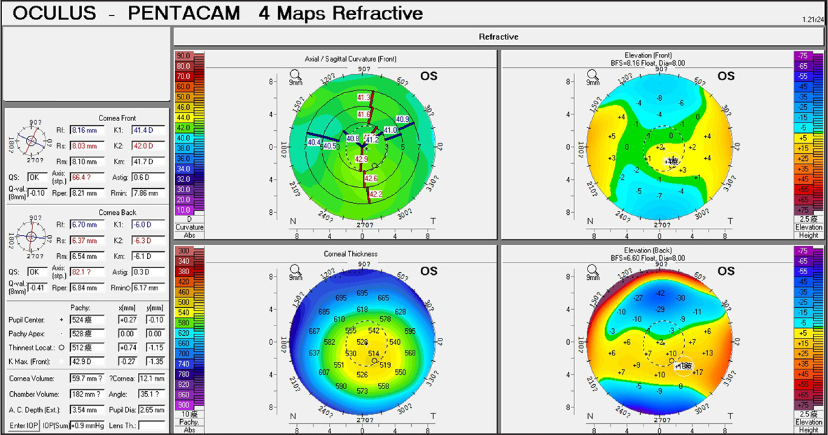 Corneal topography findings of patient 21 with subclinical keratoconus.