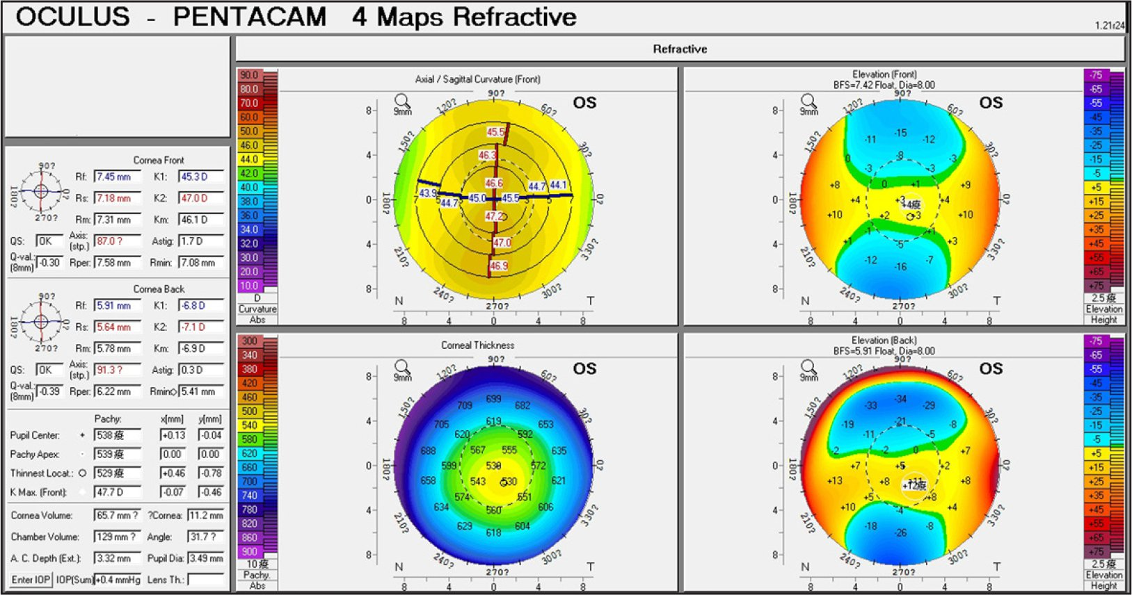 Corneal topography findings of patient 23 with subclinical keratoconus.