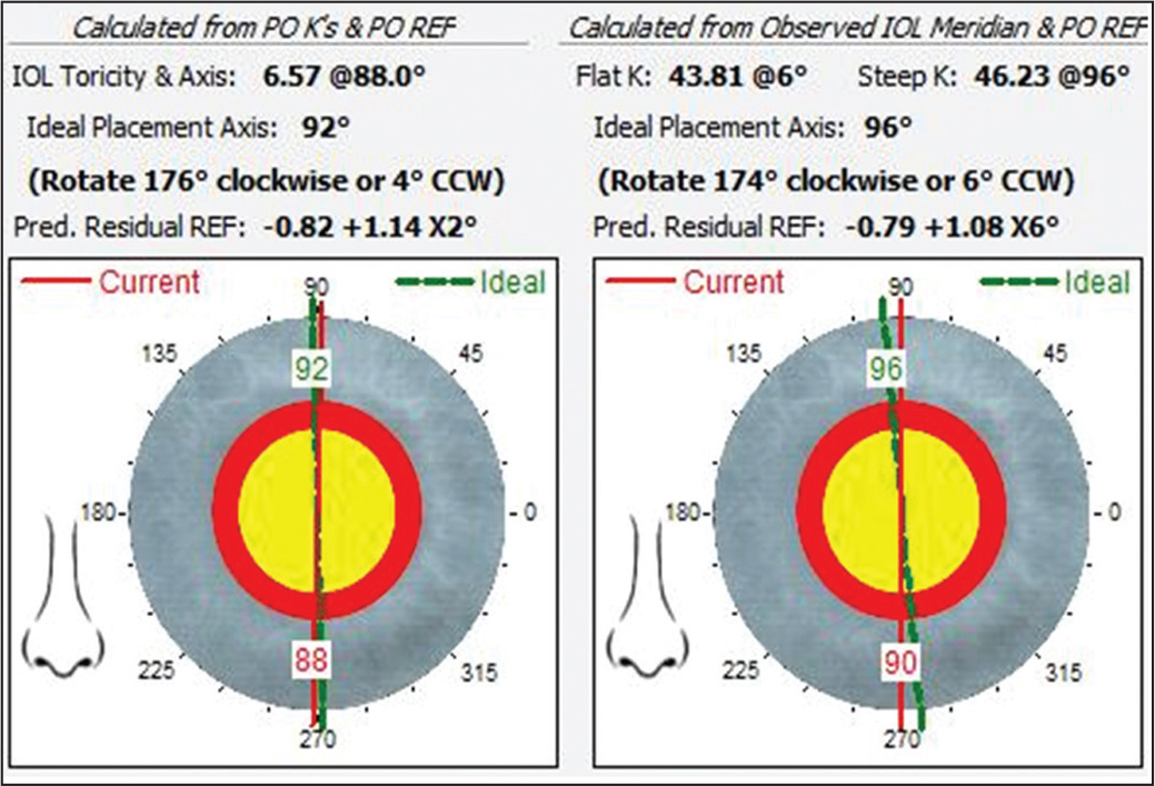 Postoperative keratometry (PO K) and postoperative refraction (PO REF) method 1 (left) and postoperative observed intraocular lens (IOL) meridian and PO REF method 2 (right) using the vergence-based toric IOL back-calculator. CCW = counterclockwise