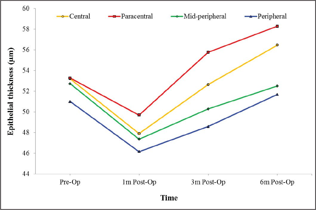 Line chart of mean epithelial thickness before and after photorefractive keratectomy separately in the central (2 mm), paracentral (2 to 5 mm), midperipheral (5 to 7 mm), and peripheral (7 to 9 mm) zones (n = 52 eyes).