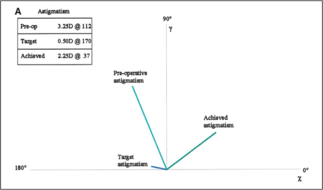 Graphical demonstration of Alpins vector-method calculation of surgically induced astigmatism (SIA). D = diopters