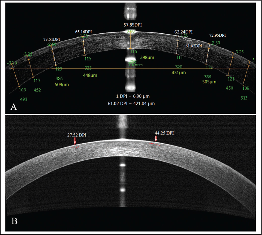(A) Through multiple measurement on the optical coherence tomography (OCT) image, the pixel length (DPI) was converted into microdistorion length (μm). (B) An illustration of the measurement of microdistortion lengths in the horizontal meridian.
