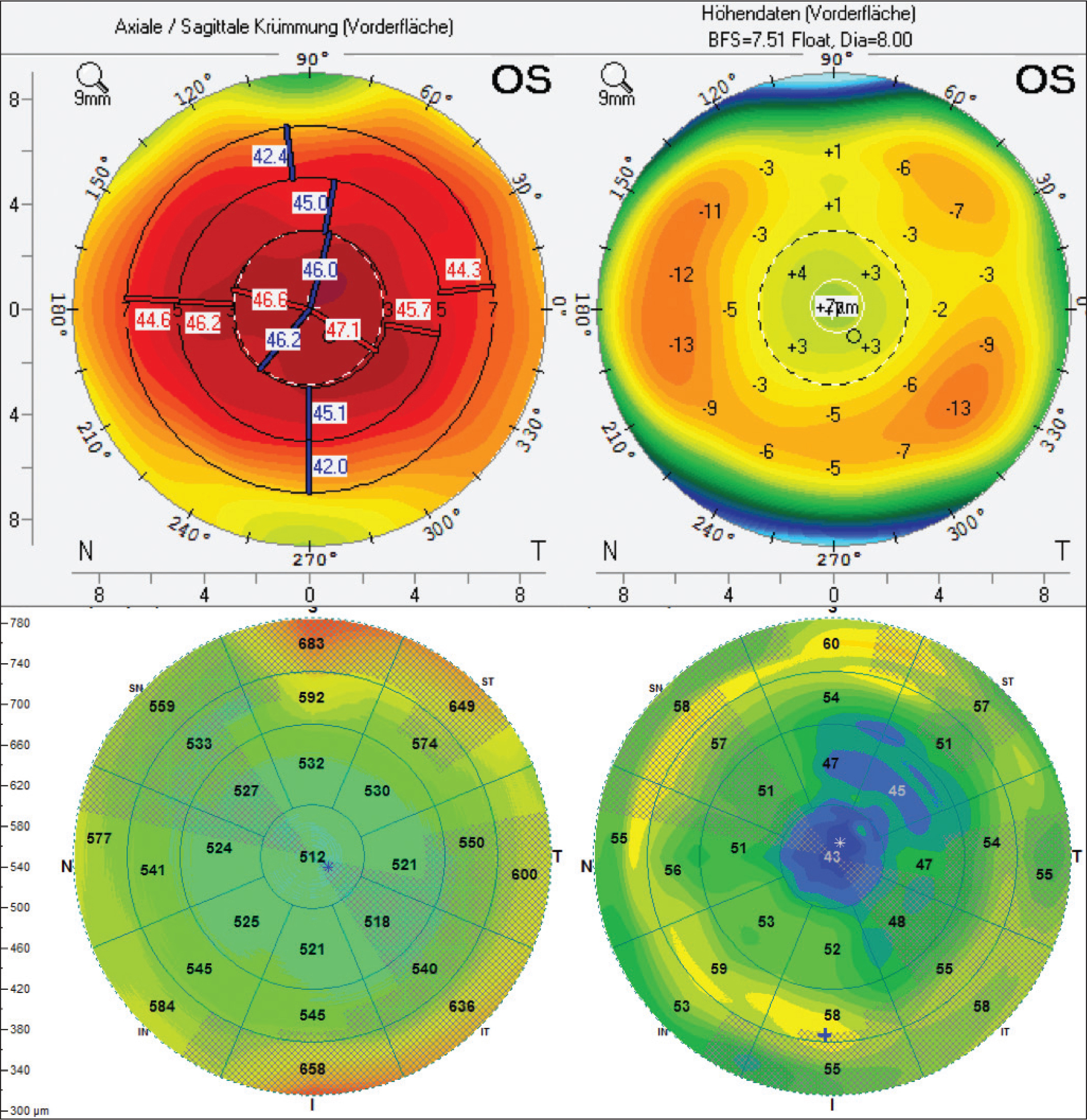 Example of epithelial masking of the central near addition zone 4 years after varifocal laser in situ keratomileusis. Axial power map and anterior float with central steepening in Pentacam (Oculus Optikgeräte GmbH, Wetzlar, Germany) examination (top row). Corresponding total corneal thickness map and epithelial thickness map (anterior segment optical coherence tomography, Avanti; Optovue, Fremont, CA) revealing epithelial thinning over the central near addition zone of 2-mm diameter (bottom row). Minimum epithelial thickness is 39 µm (marked with *) and maximum epithelial thickness is 61 µm (marked with +).