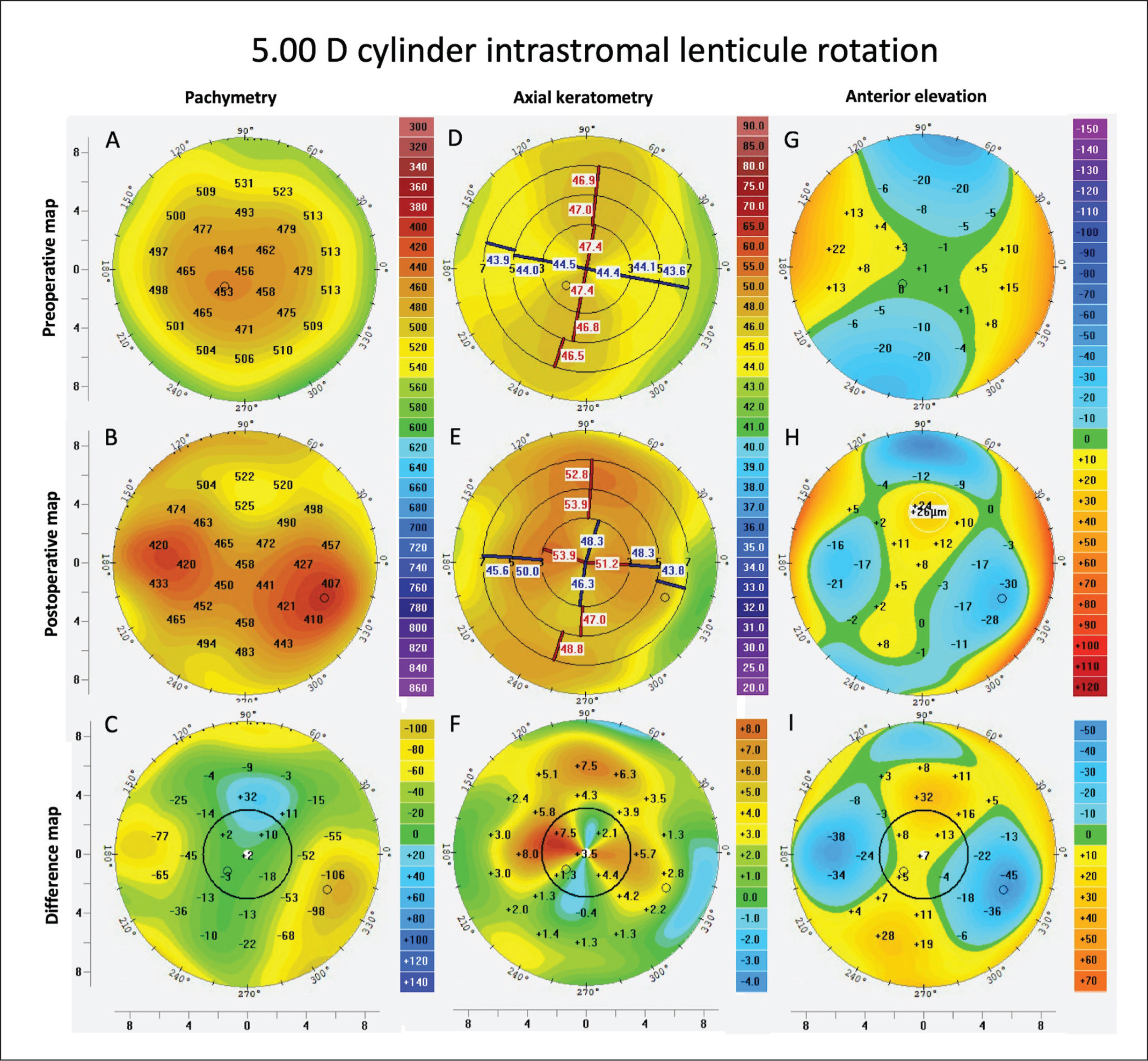 (A–C) Corneal pachymetry, (D–F) axial keratometry, and (G–I) anterior elevation maps before and after 90° intrastromal rotation of a small incision lenticule extraction (SMILE)–derived lenticule with the programmed correction of −0.50 −5.00 × 165° (the 10.00 diopters [D] group).