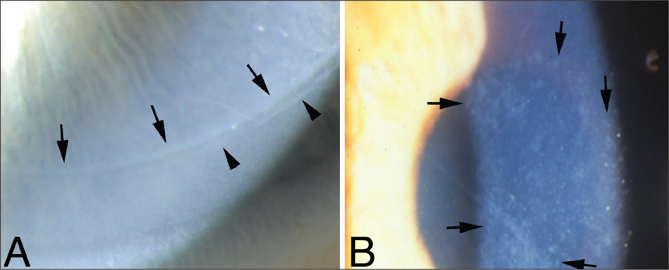 Fibrosis in laser in situ keratomileusis (LASIK). (A) Normal corneal fibrosis at the flap edge that is normal after LASIK. In this case, there is a double line with the internal line indicated by arrows and the outer line indicated by arrowheads. This fibrosis is mediated by myofibroblasts. (B) A flap complication with a microkeratome resulted in patches of subepithelial fibrosis (arrows) surrounding the linear cut through the epithelium and into the stroma. This fibrosis is also mediated by the development of myofibroblasts. Original magnification ×25.