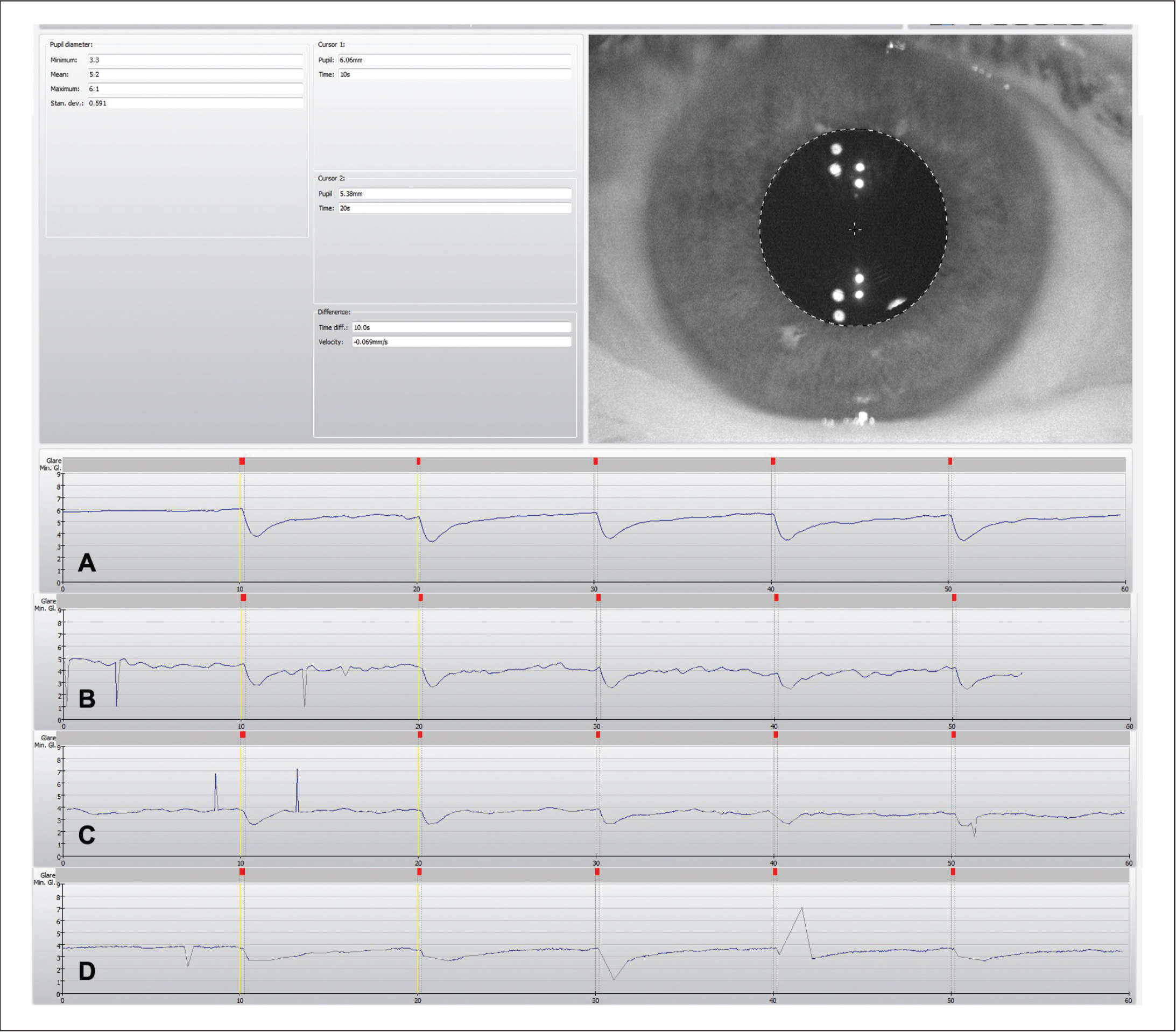 Screen capture of the Keratography 5M software (Oculus Optikgeräte) showing (A) a perfect measurement and measurements with artefacts with the potential of leading to wrong estimations of (B) photopic, (C) mesopic, or (D) both pupil measurements. The horizontal axis represents the time during the trial consisting of periodic consecutive periods of pause, 10 seconds at environmental mesopic light of 5 lux (marked with a vertical yellow line), followed of 0.2 seconds of glare of 568 lux (red mark). The blue line represents the pupil diameter oscillations, with minimum representing the photopic pupil diameter and maximum mesopic pupil diameter.