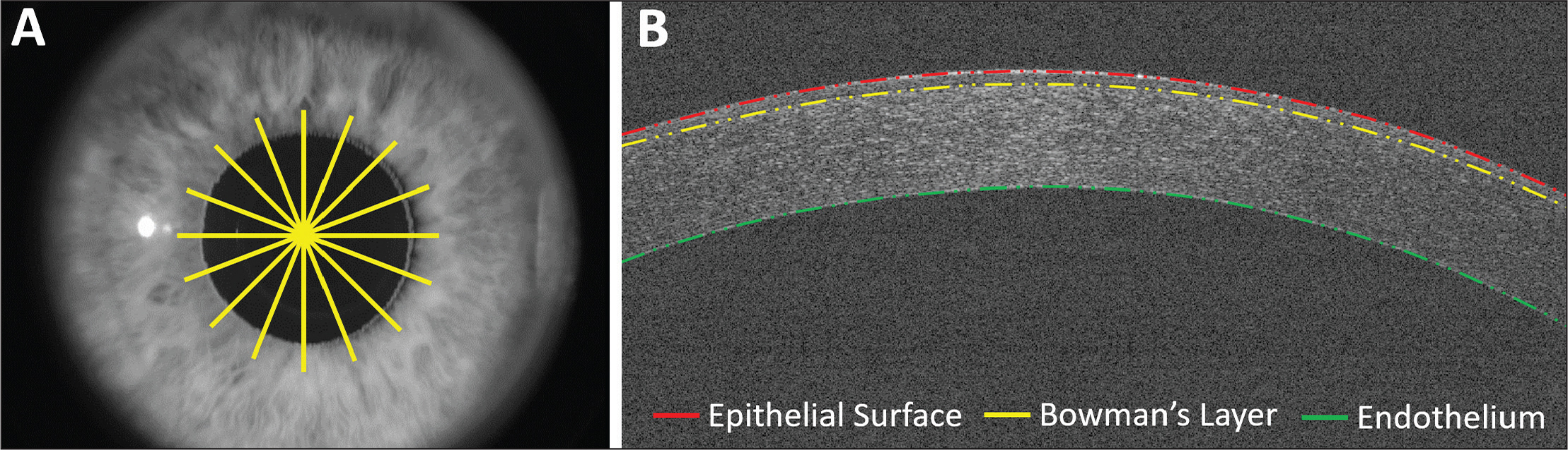 (A) Optical coherence tomography (OCT) radial scan pattern used to obtain 6-mm–wide images of the cornea. (B) Representative OCT image of a cornea with segmented boundaries.