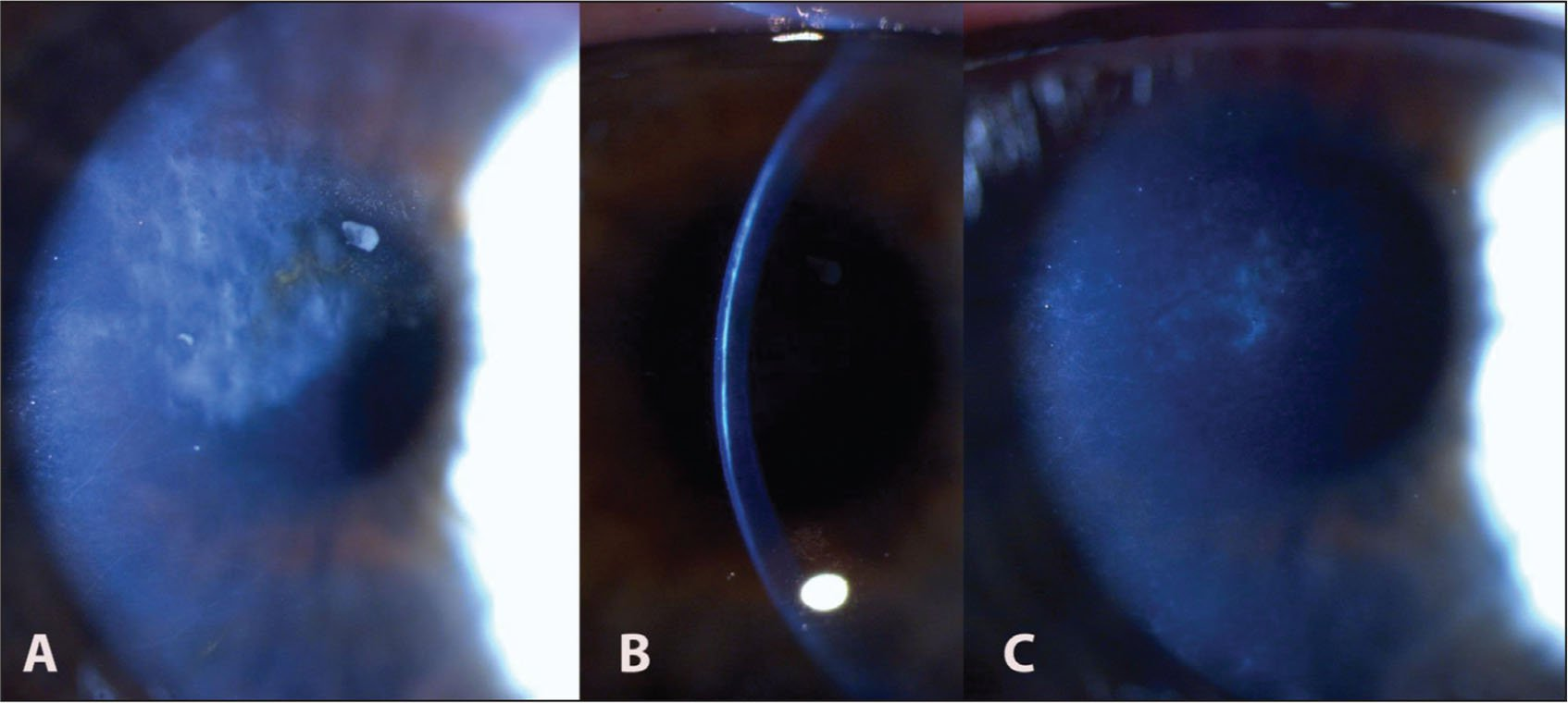 (A and B) Post-adenoviral dense stromal scar affecting the central cornea. (C) Significant improvement of the corneal opacity after surface ablation, with residual stromal haze.