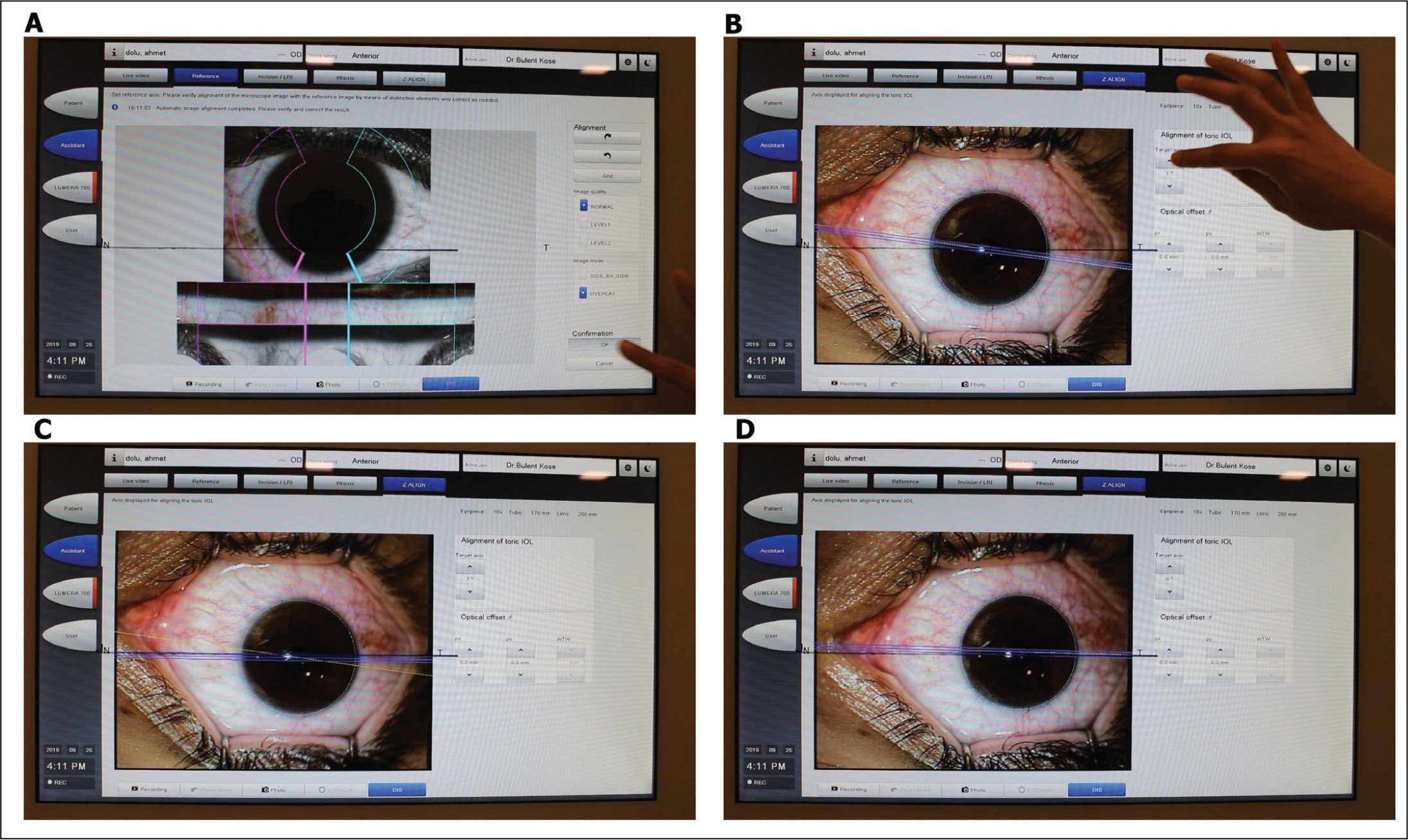 Cyclotorsion compensation with the Callisto eye system (Carl Zeiss Meditec AG, Jena, Germany). A black horizontal line was previously drawn with a marker pen on the center of the live stream window. (A) Captured image and the previously registered IOLMaster 700 (Carl Zeiss Meditec AG) image were overlapped in a translucent view and confirmation button was activated manually on the Callisto eye screen. (B) A yellow line appeared on the screen and represented the registered 0–180 axis of the patient. The black line represented the 0–180 axis of the VisuMax laser treatment (Carl Zeiss Meditec AG). Z-align function was activated and rotated to measure the amount of angle of cyclotorsion. (C) The Z-align was overlapped with black line and cyclotorsion angle was determined. (D) The patient's head was rotated until the black and yellow lines overlapped. The patient was instructed to remain still during the small incision lenticule extraction procedure.
