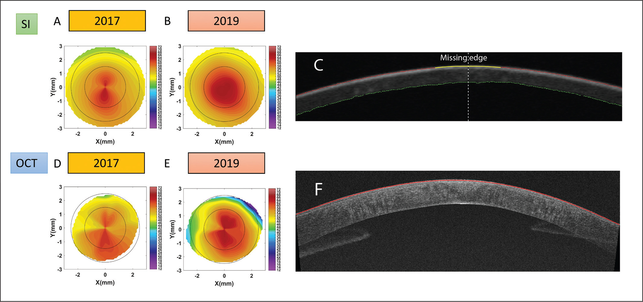 Scheimpflug imaging (SI) axial curvature of anterior surface of the left eye in (A) 2017 and (B) 2019, and optical coherence tomography (OCT) anterior surface curvature in (D) 2017 and (E) 2019. The color bar unit is diopters. The edge detection in a cross-sectional SI and OCT image of the left eye in shown in (C) and (F), respectively. Note the missing edge highlighted with the yellow line in (C).
