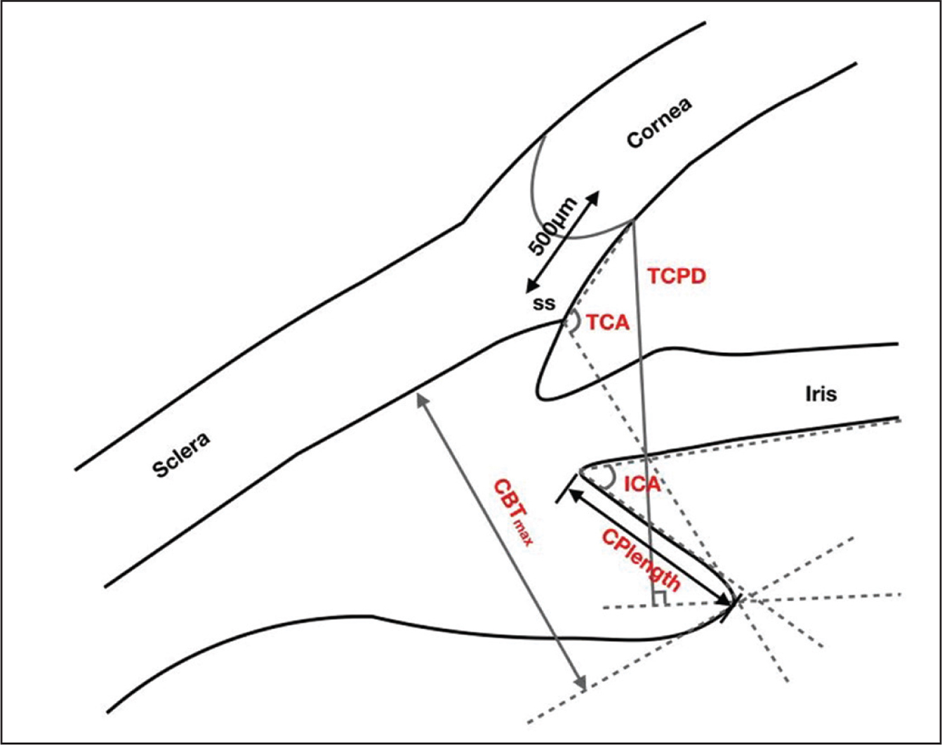 Diagrammatic representation of the ultrasound biomicroscopy measurements of ciliary body parameters. Iris-ciliary angle (ICA) is the angle between the posterior iris surface and the anterior surface of the ciliary body; trabecular-ciliary angle (TCA) is measured with the scleral spur as the apex and the corneal endothelium and the anterior surface of the ciliary body as the arms of the angle; trabecular ciliary process distance (TCPD) is defined as the length of the line extending from the corneal endothelium 500 μm from the scleral spur perpendicularly to the line passing through the innermost point of ciliary body and parallel to the iris; maximum ciliary body thickness (CBTmax) is the distance from the innermost point of the ciliary body to the inner wall of the sclera or its extended line; ciliary process length (CPlength) is the distance from the innermost point of the ciliary body to the intersection point of the iris and ciliary body.