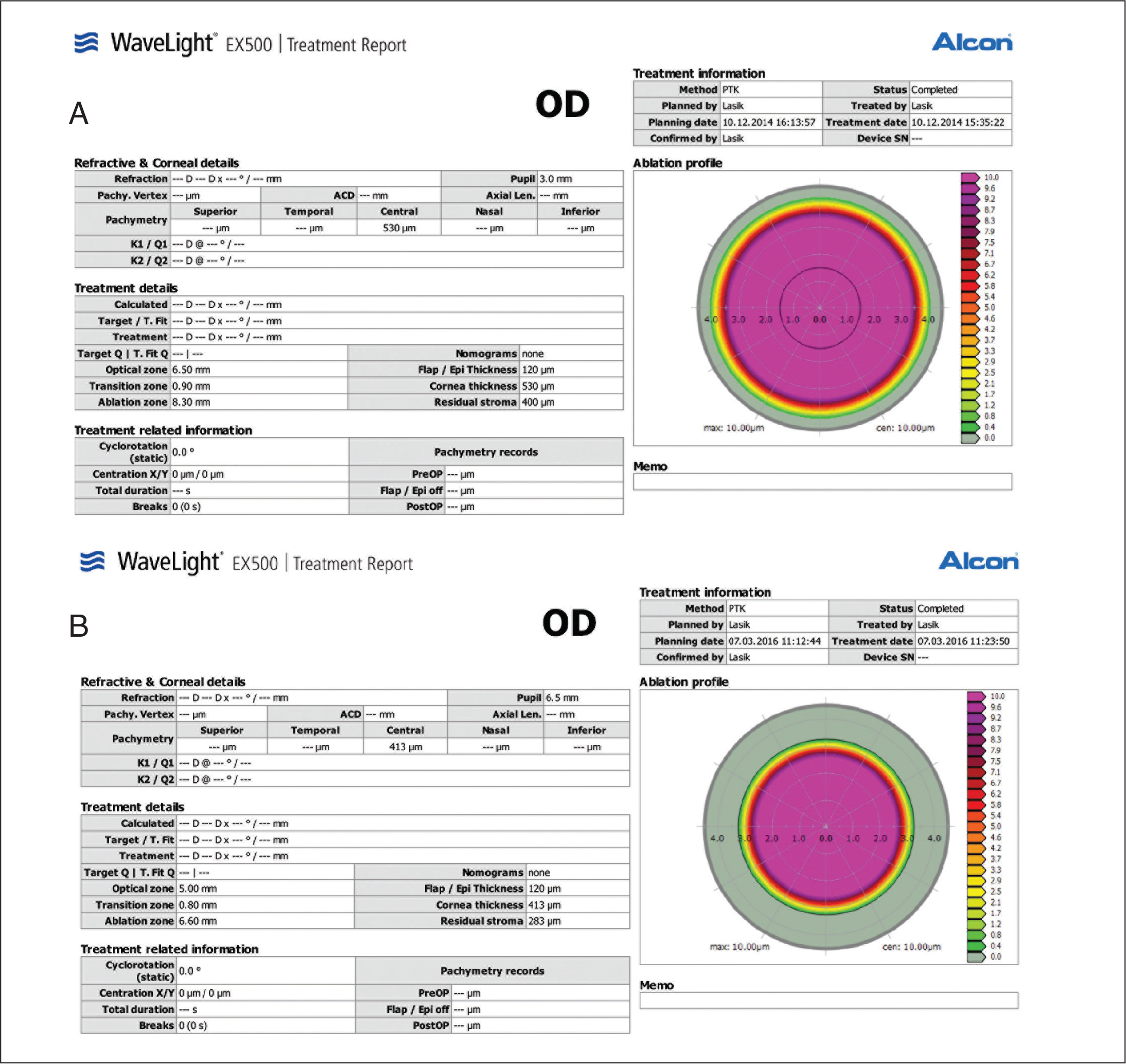 Undersurface flap photoablation treatment settings. (A) First revision was composed of a 10-µm undersurface flap photoablation and provided significant but limited improved, and (B) a second 10-µm undersurface flap photoablation was required.