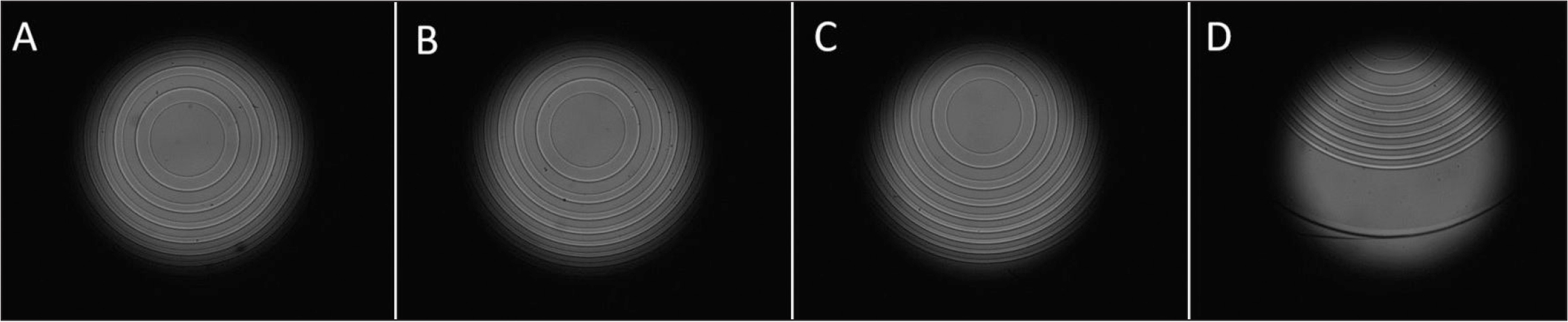 Photographs of a decentered trifocal supplementary lens by (A) 0.2, (B) 0.4, (C) 0.6, and (D) 1.8 mm.