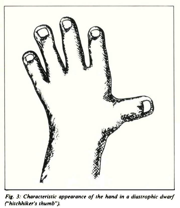 "Fig. 3: Characteristic appearance of the hand in a diasirophic dwarf C'hitchhiker's thumb"")."