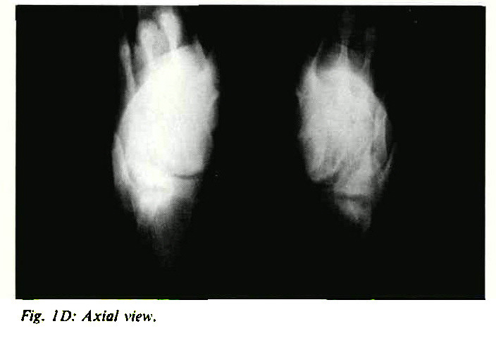 Fig. 1D: Axial view.