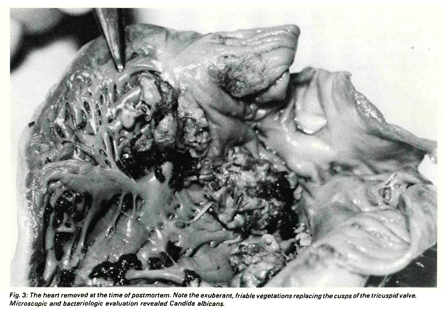 Fig. 3: The heart removed at the time of postmortem. /Vofe the exuberant, friable vegetations replacing the cusps of the tricuspid valve. Microscopìe and bactériologie evaluation revealed Candida albicans.