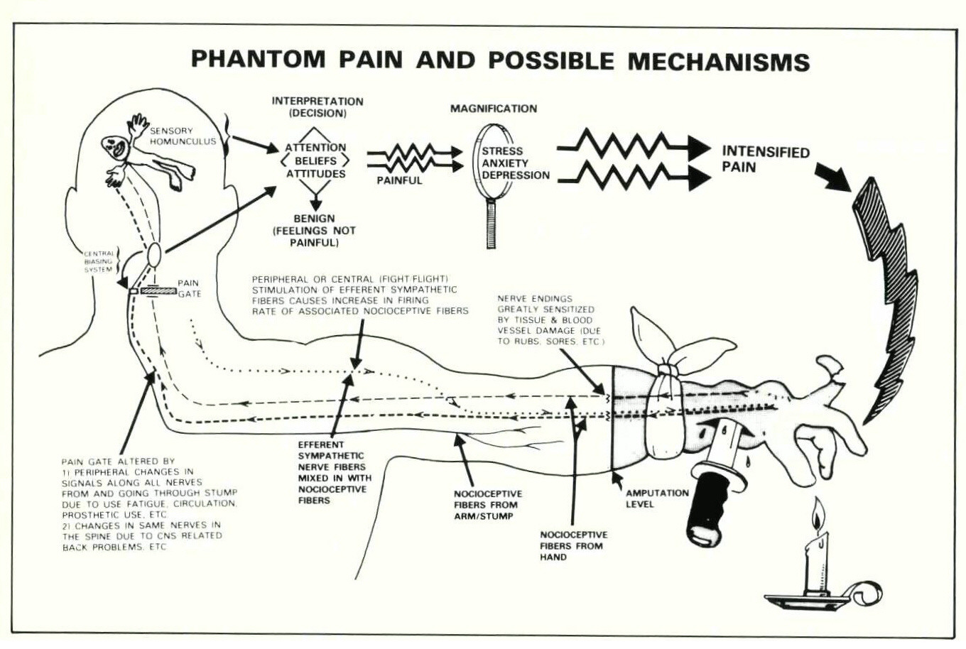 the perception of pain in phantom limbs Phantom limb pain can have a debilitating and devastating effect on a   scientists believe that phantom limb perceptions stem from residual.