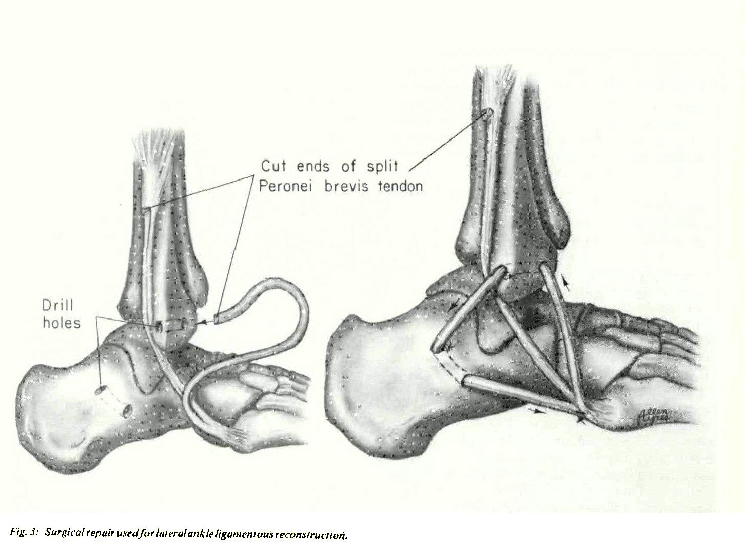 RECONSTRUCTION FOR CHRONIC LATERAL INSTABILITY OF THE ANKLE: A ...