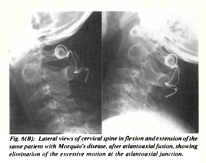 Fig. 6(B): Lateral views of cervical spine inflexion and extension of the same patient with Morquio's disease, after atlantoaxial fusion, showing elimination of the excessive motion at the atlantoaxial iunction.