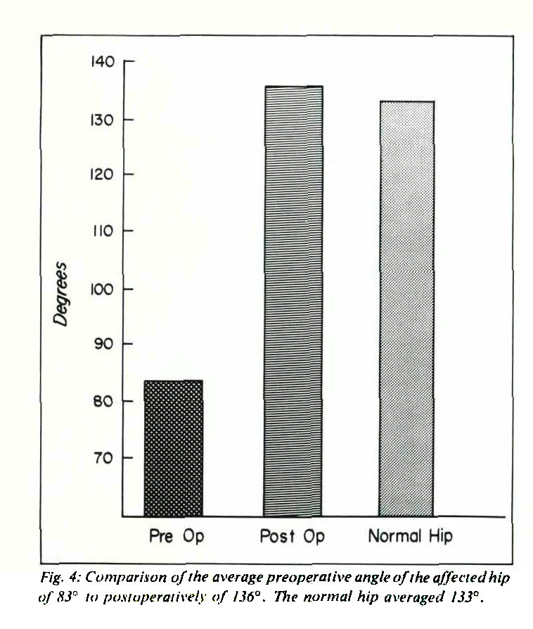 """Fig. 4: Comparison of the average preoperative angle of the affected hip of S3"""" to postoperatively of 136°. The normal hip averaged 133°."""