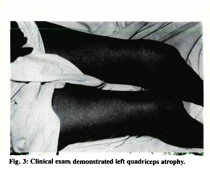 Fig. 3: Clinical exam demonstrated left quadriceps atrophy.